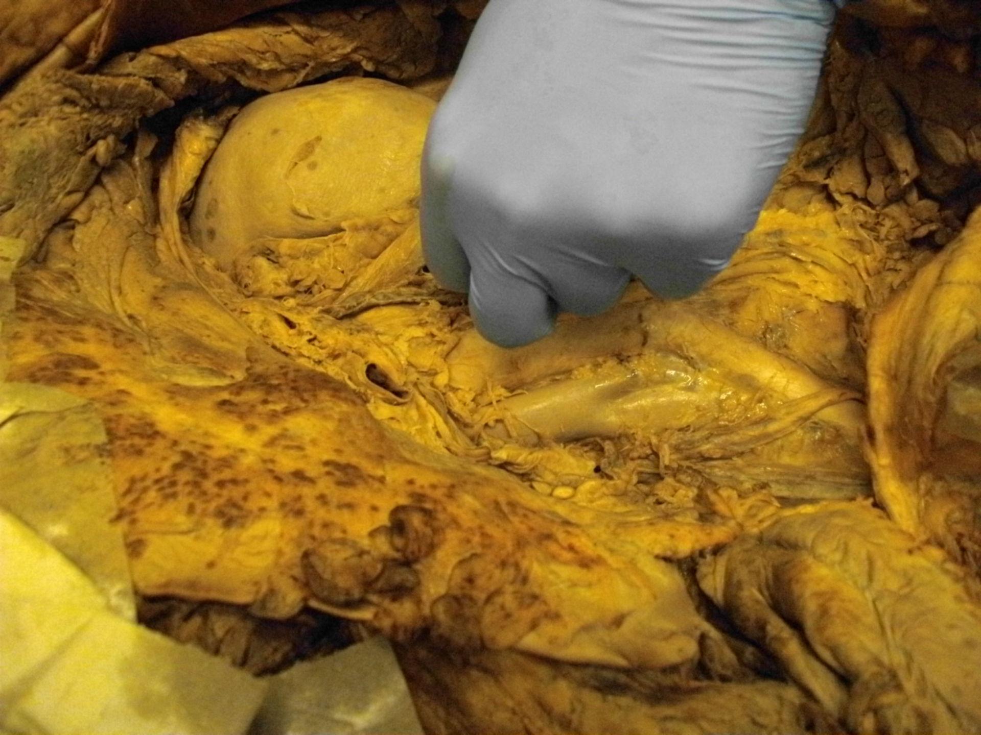 Kidney in situ