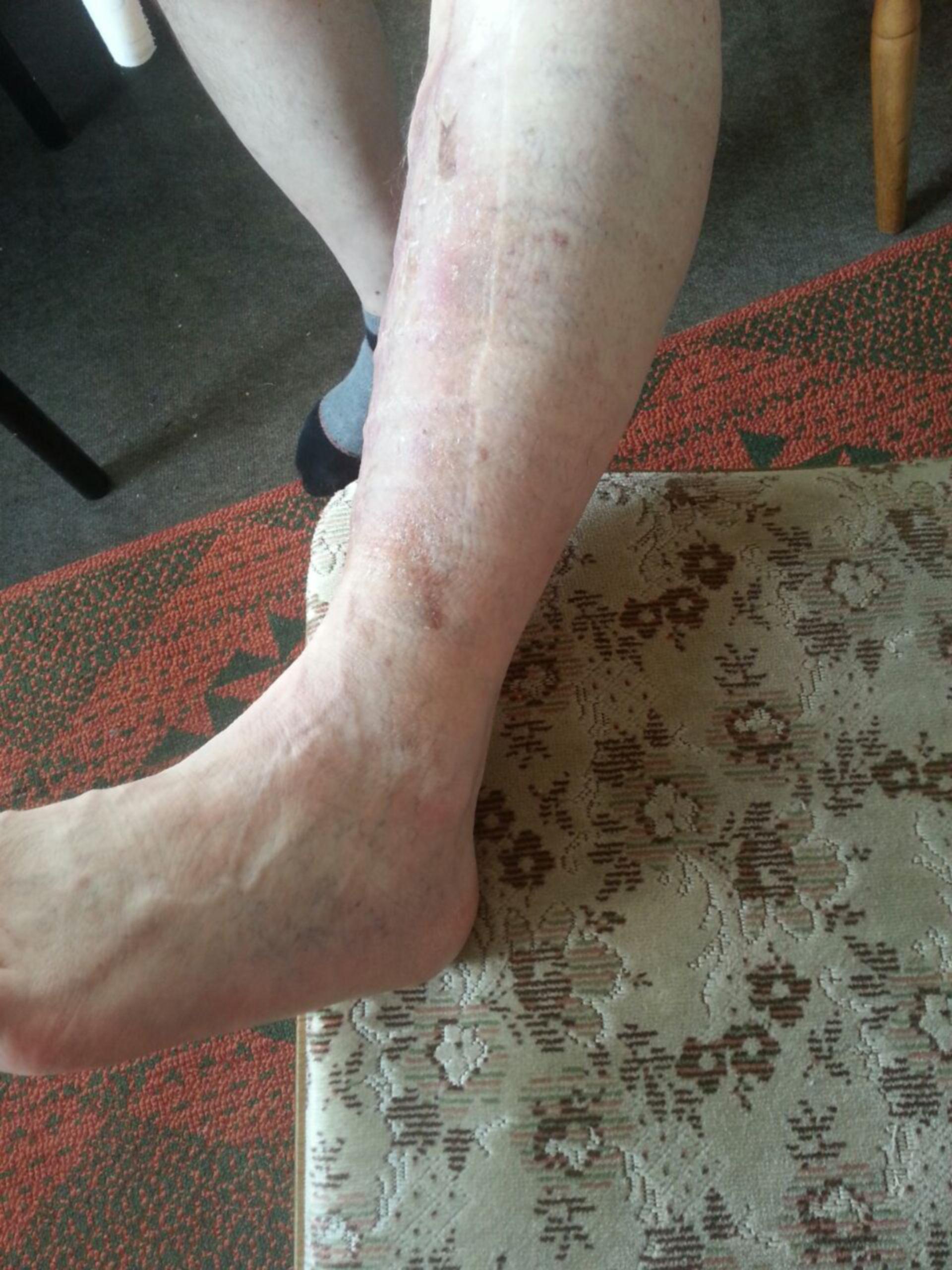 Úlcera de la pierna -20 años abierta: resultado ambulatorio (20)