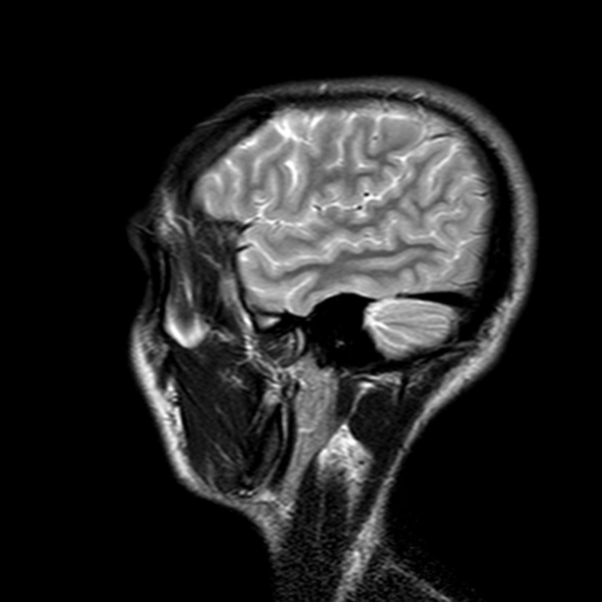 (28/34) MRT Schädel in Sagittalebene, T₂‐gewichtet