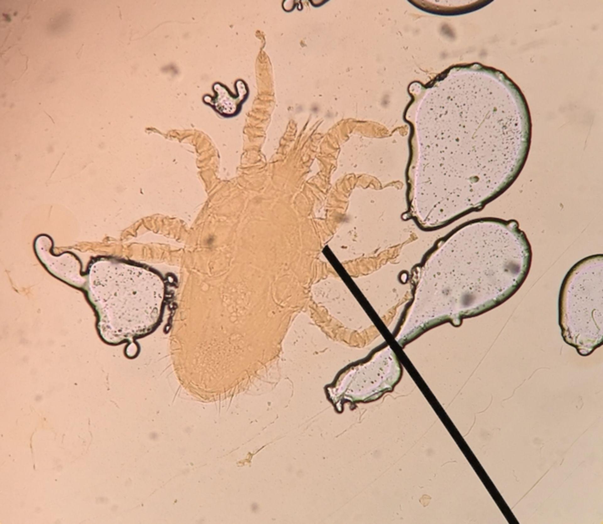 Ornithonyssus sylvarium (1/3)