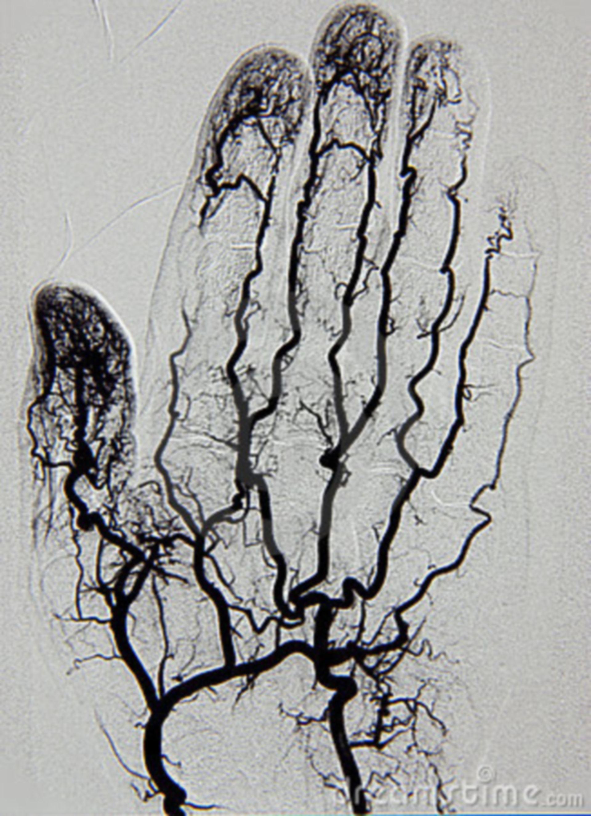 Hand Angiographie