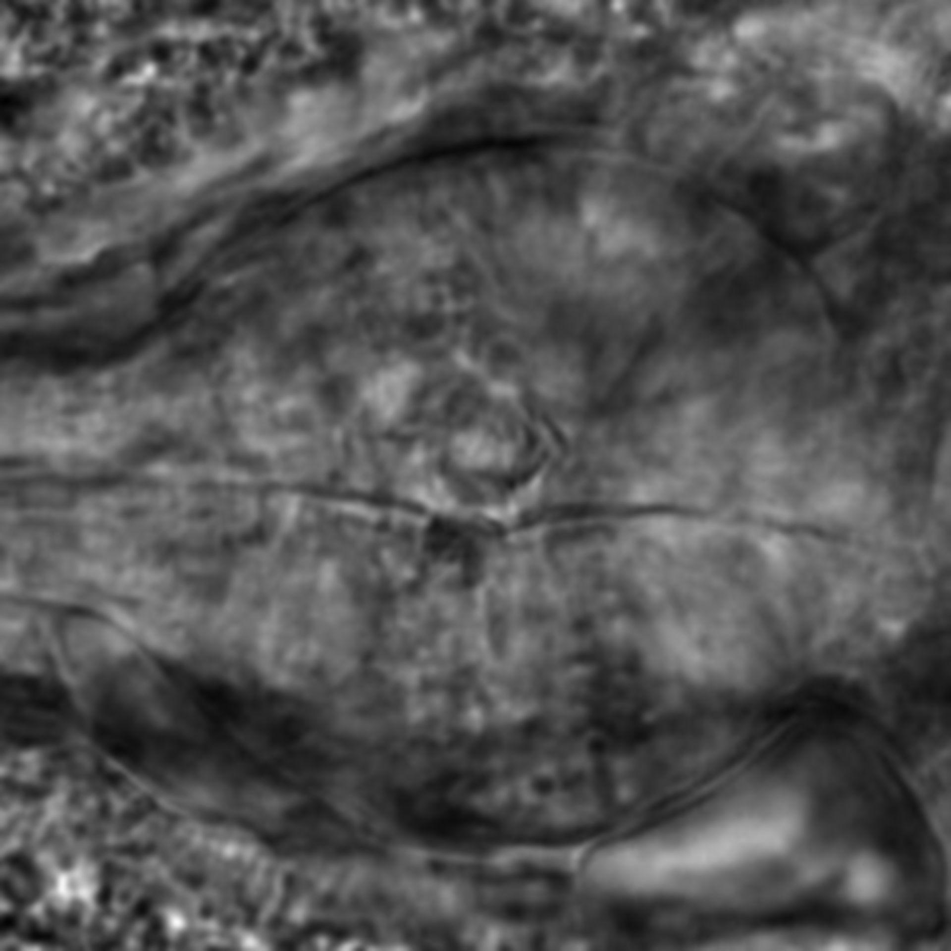 Caenorhabditis elegans - CIL:2855