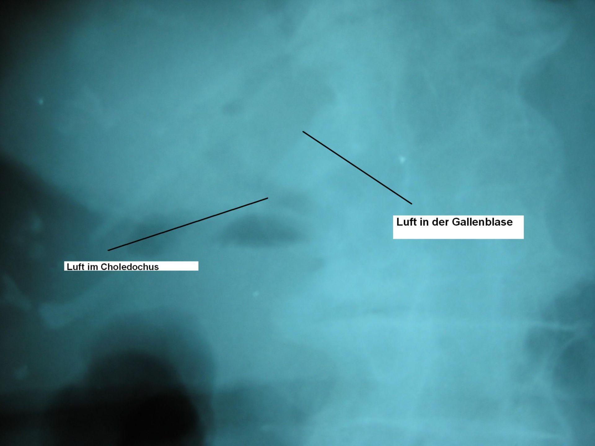 Gallensteinileus - Röntgenbild