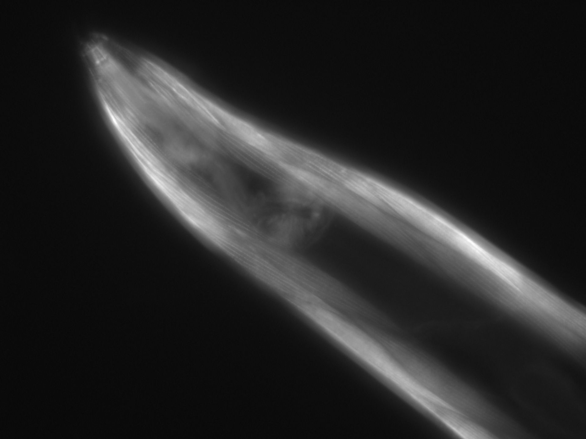 Caenorhabditis elegans (Actin filament) - CIL:1060