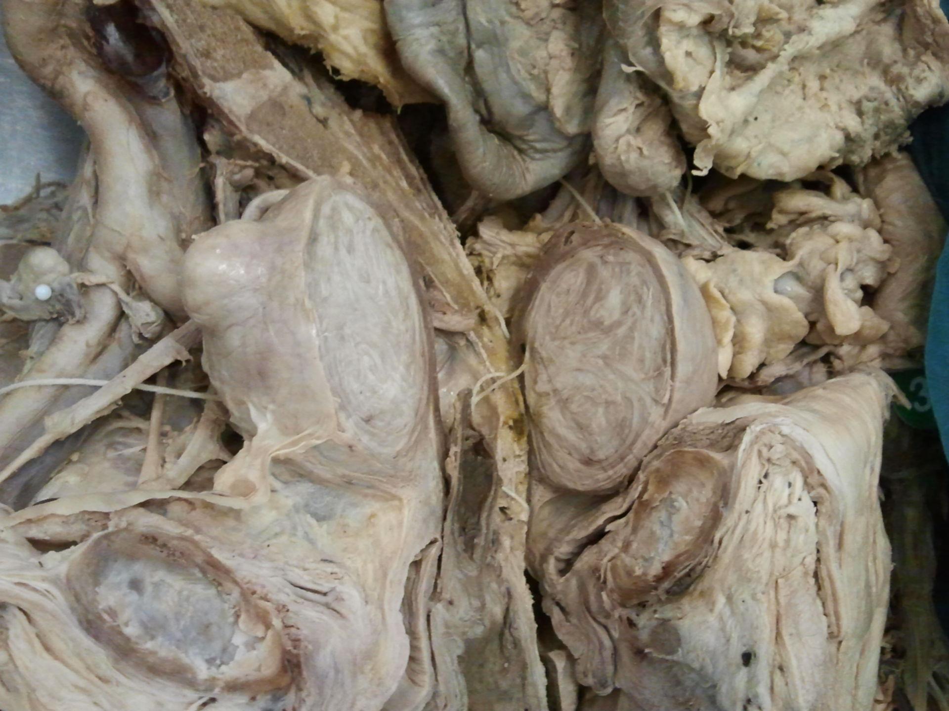 Uterine cyst open 2
