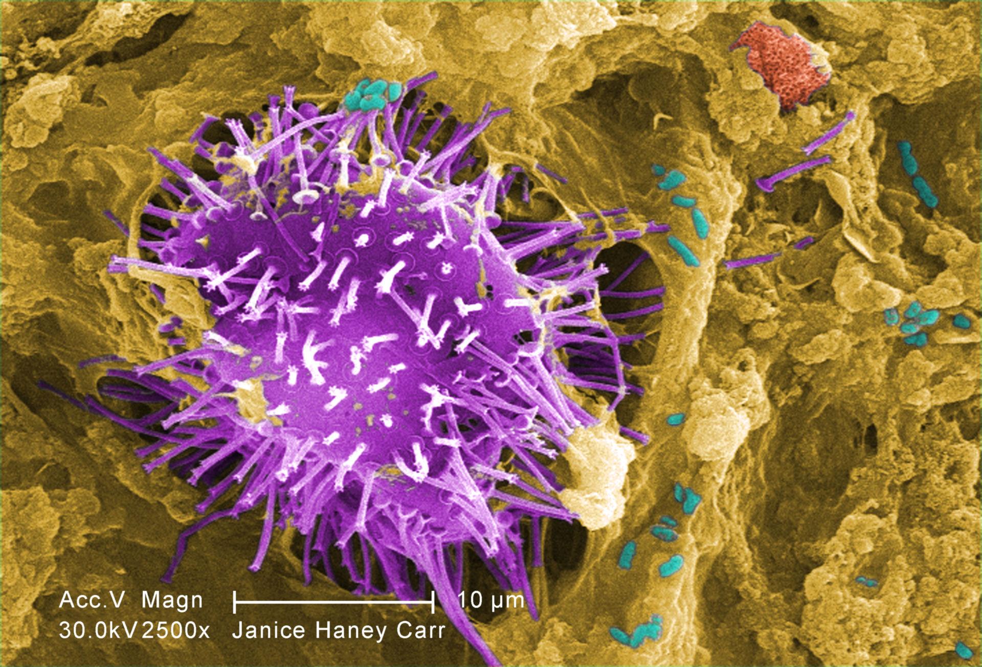 Mikroorganismen unter Rasterelektronenmikroskop (REM)