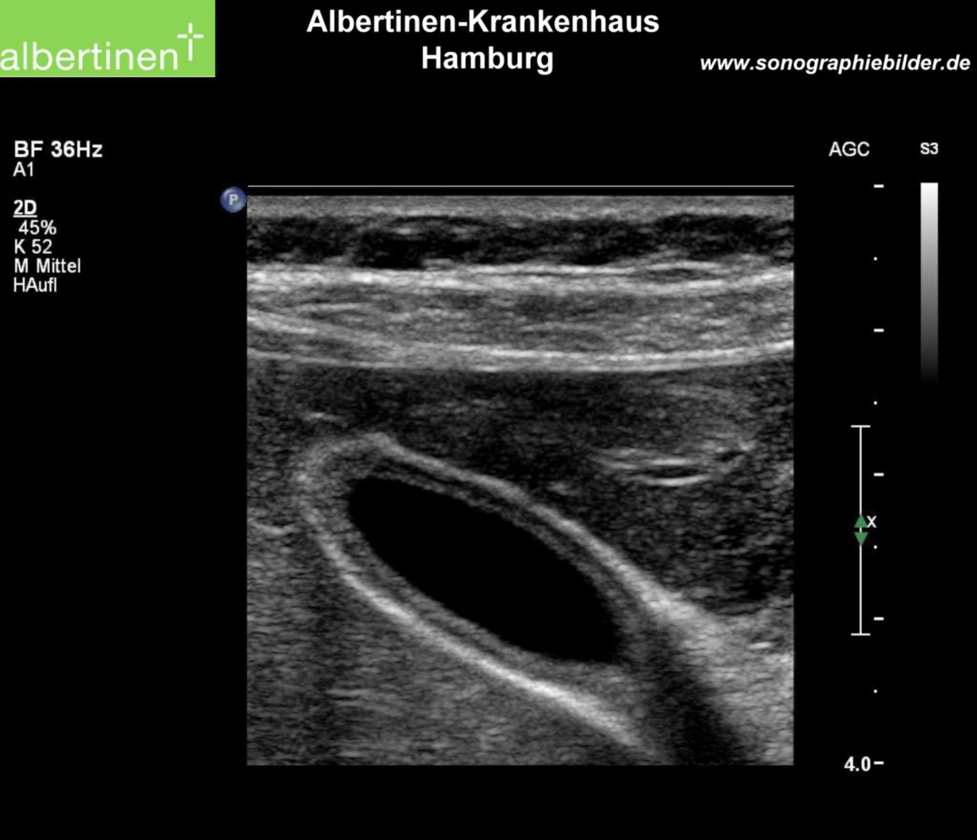 Normale cistifellea, ultrasuoni