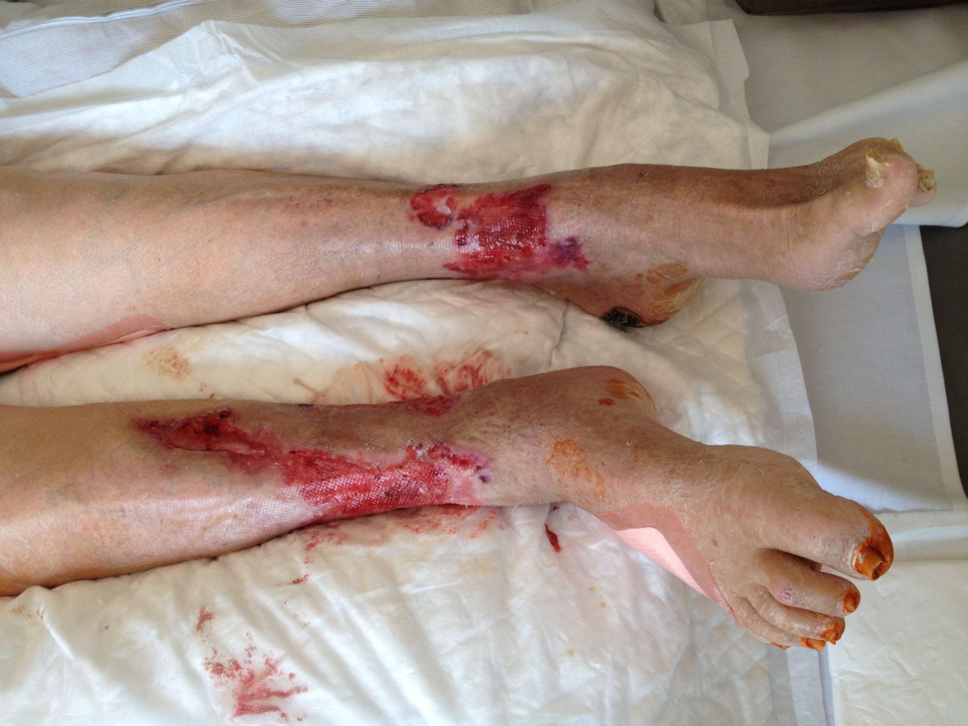 Ulcera alla gamba