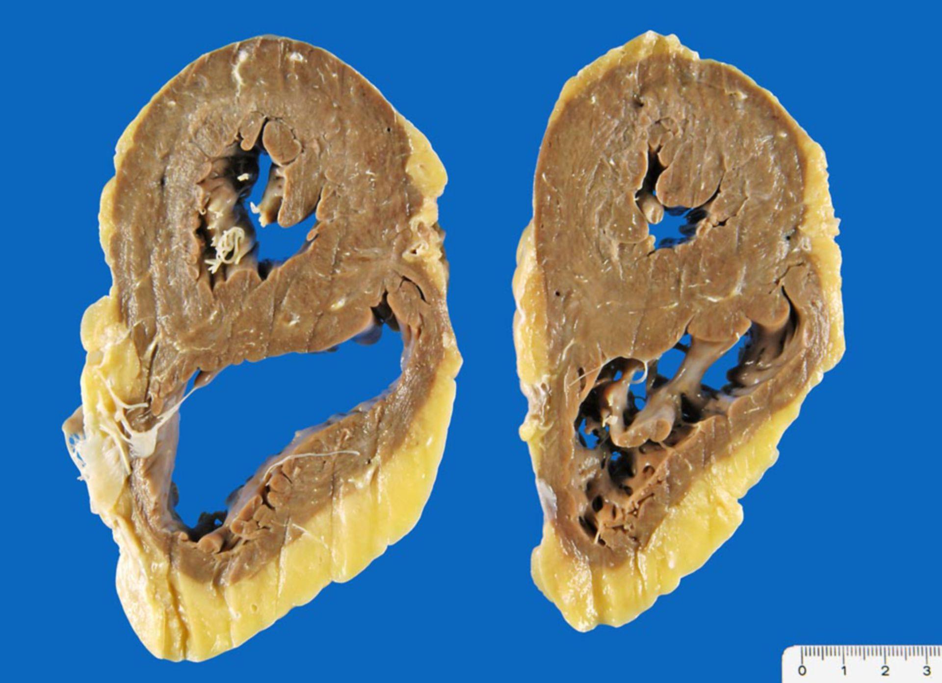 Biventrikuläre Herzhypertrophie bei arterieller Hypertonie