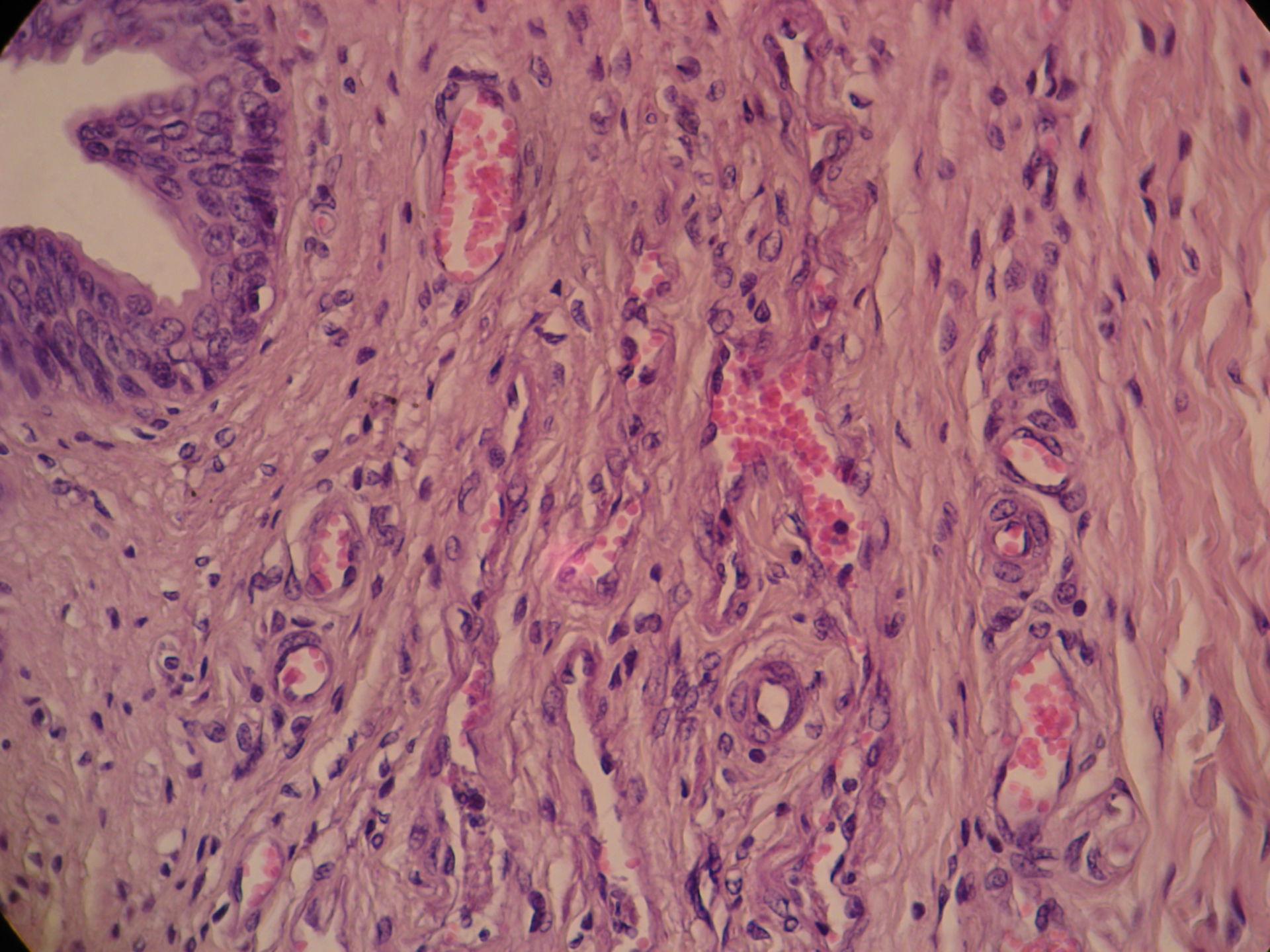Gland of cat 5 - Corpus spongiosum