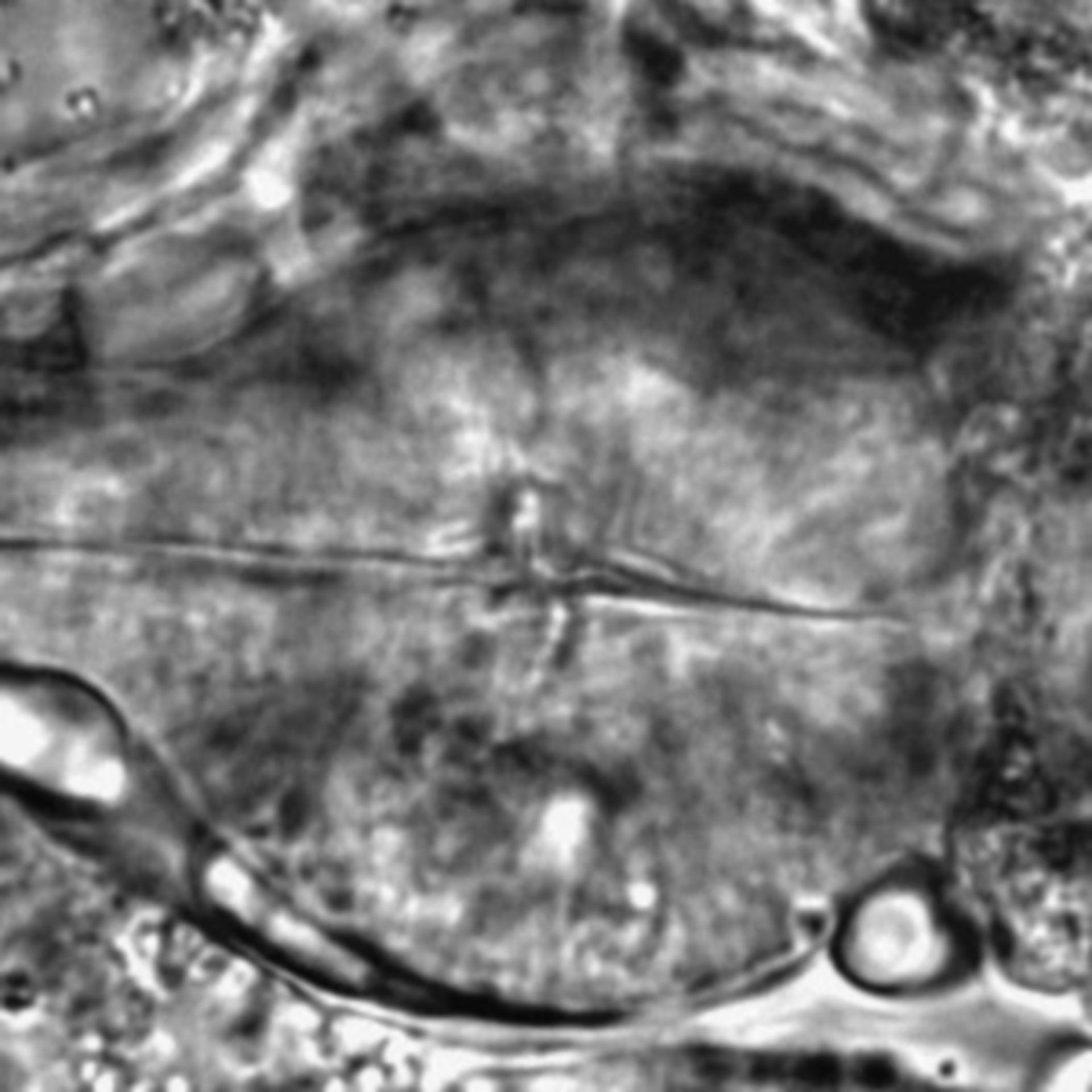 Caenorhabditis elegans - CIL:2295