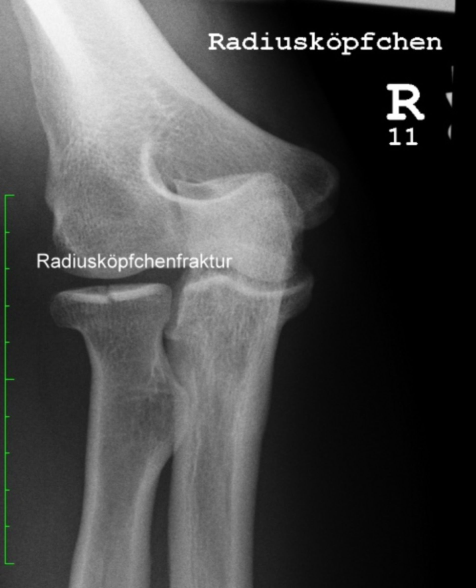 Radial head fracture