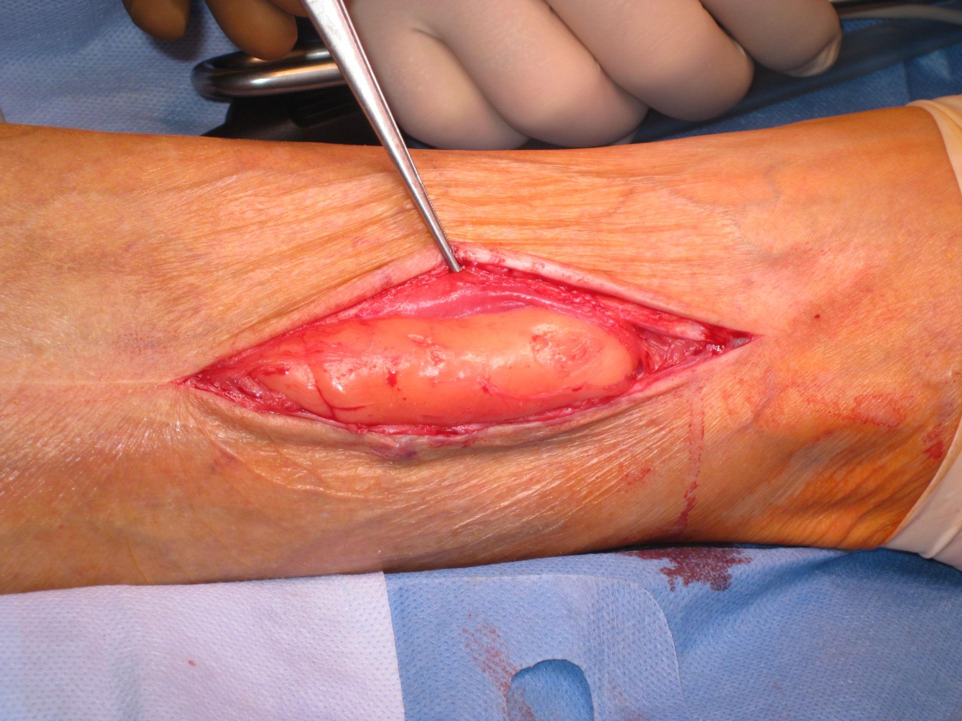 Lipoma gamba destra