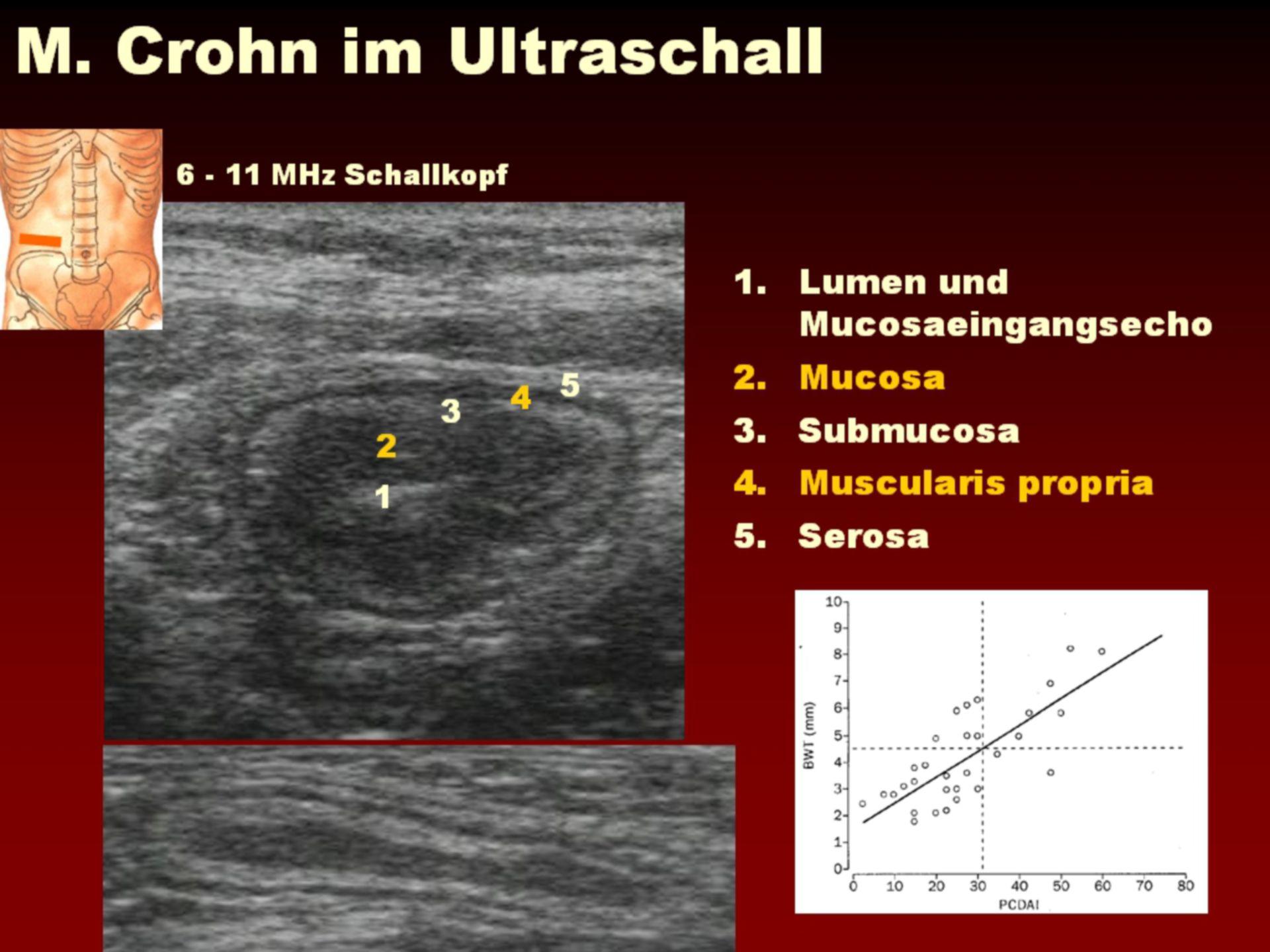 Morbus Crohn im Ultraschall