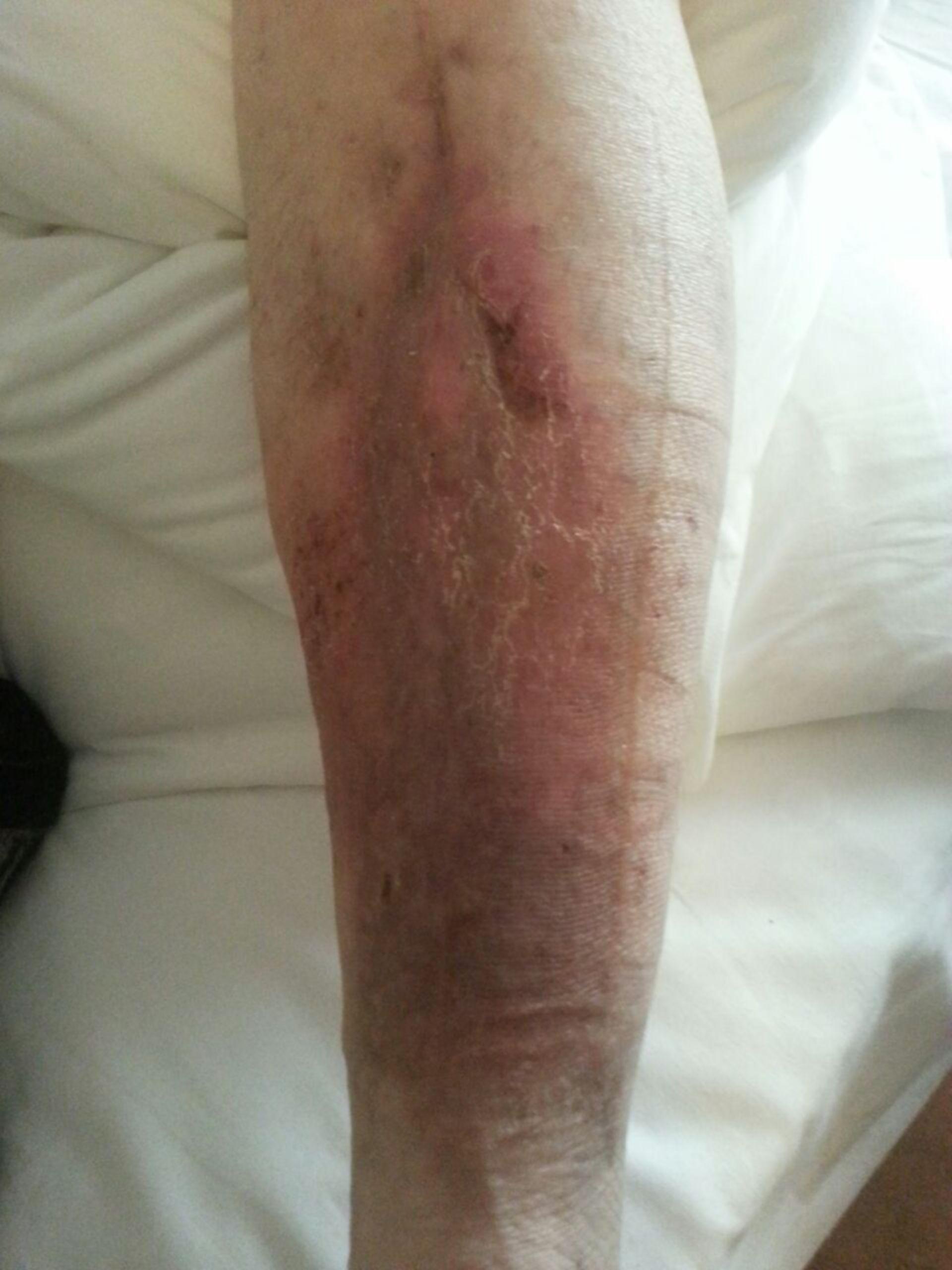 Úlcera de la pierna -20 años abierta: resultado ambulatorio (19)