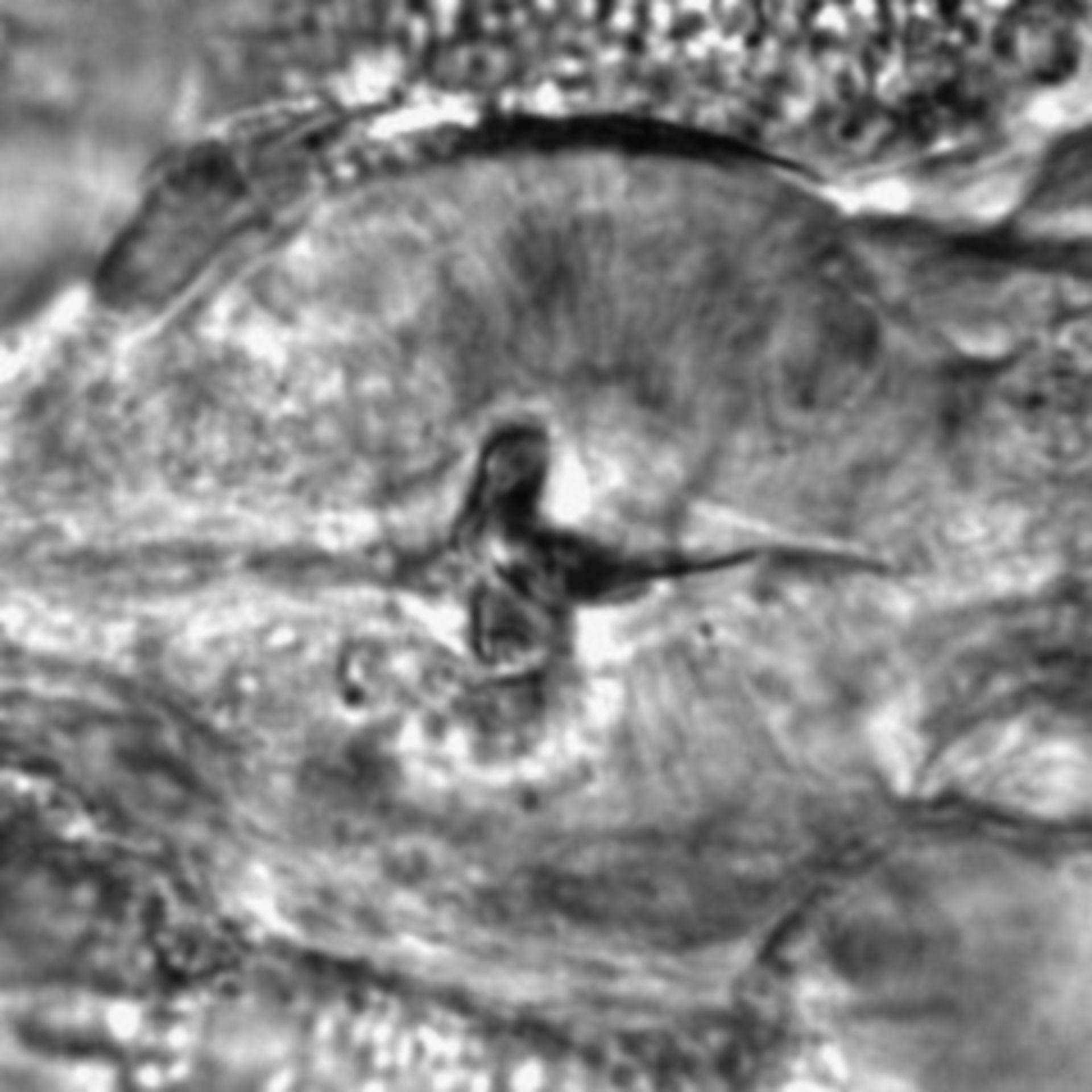 Caenorhabditis elegans - CIL:1925