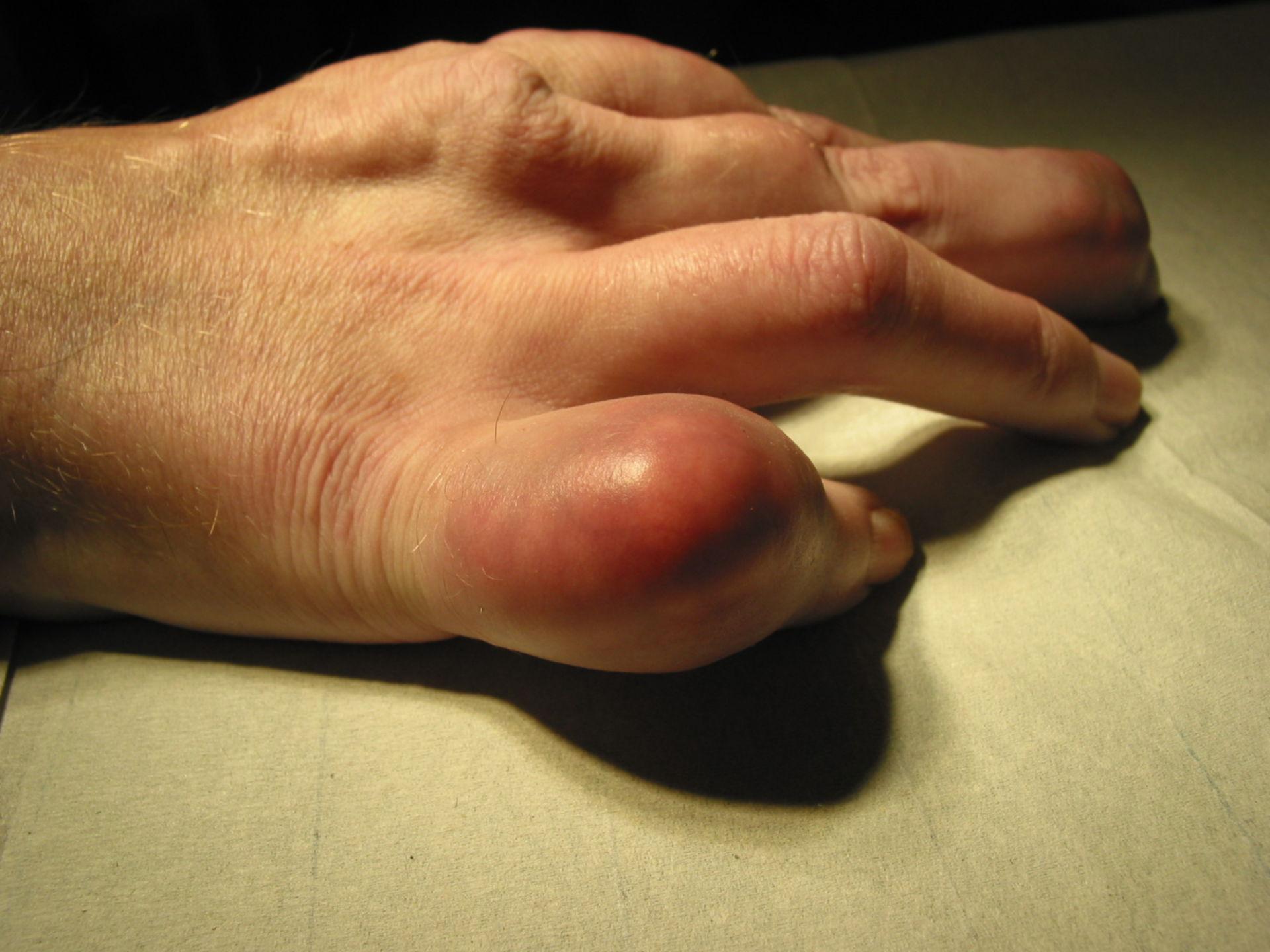 Gota afectando al quinto dedo