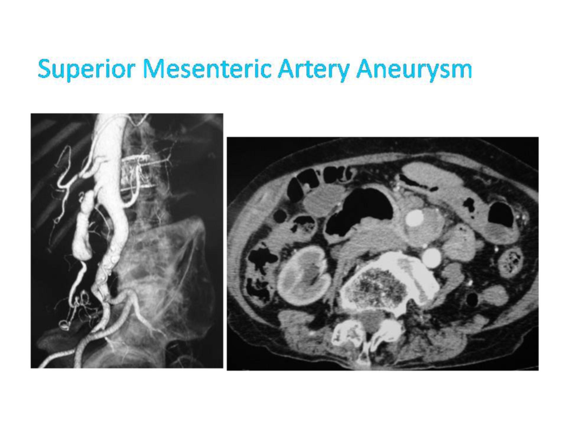 Aneurysma in der Arteria mesenterica superior (2)