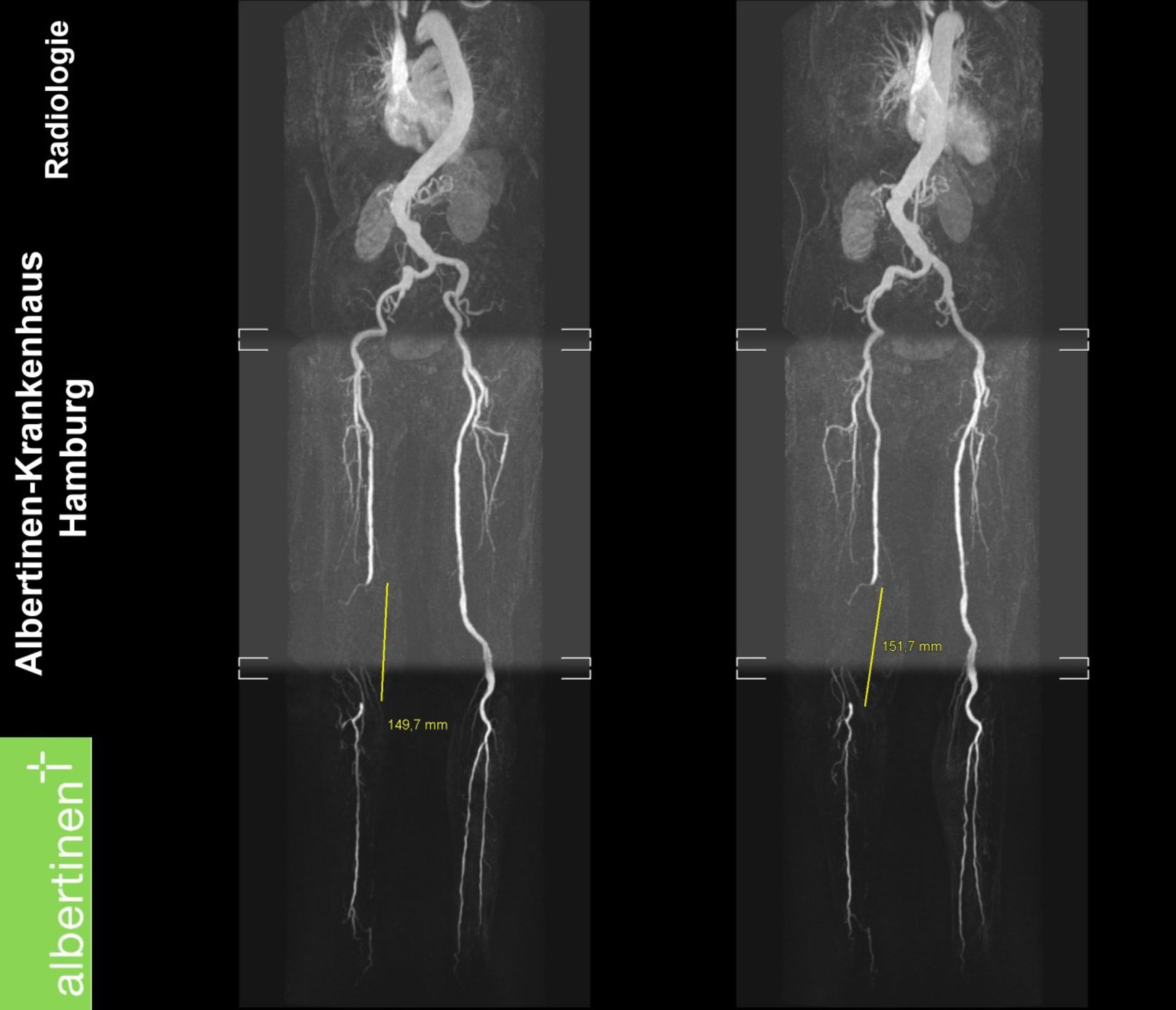 MRI: Occlusion of the femoral artery in the left leg