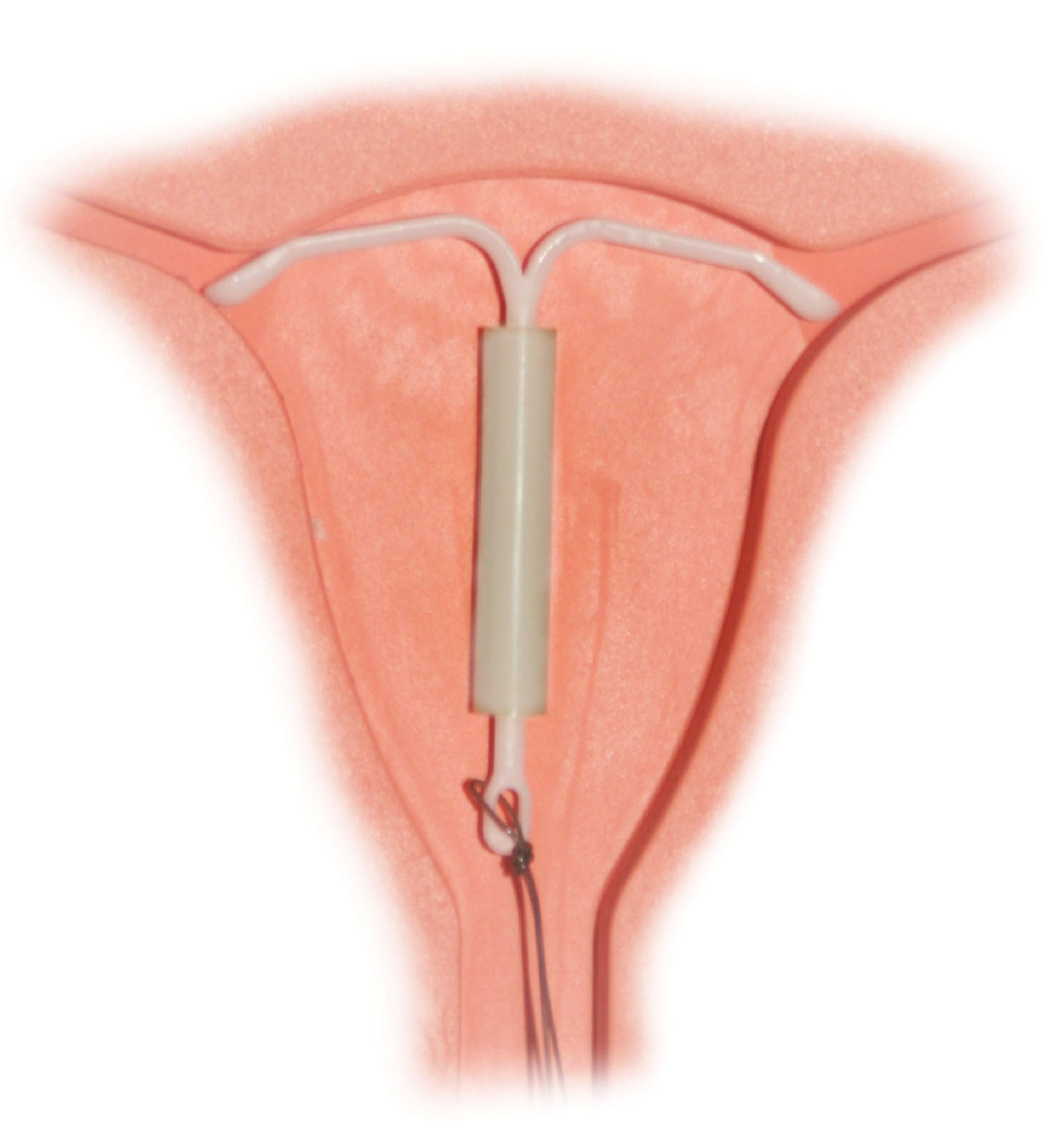 Correctly placed IUD