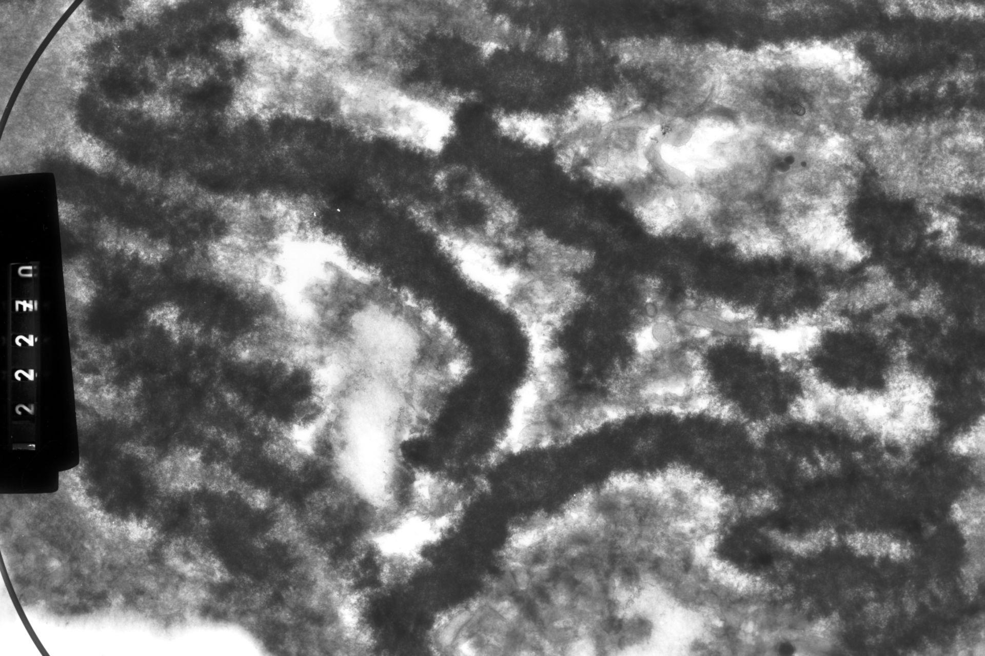 Haemanthus katharinae (Nuclear chromosome) - CIL:13192