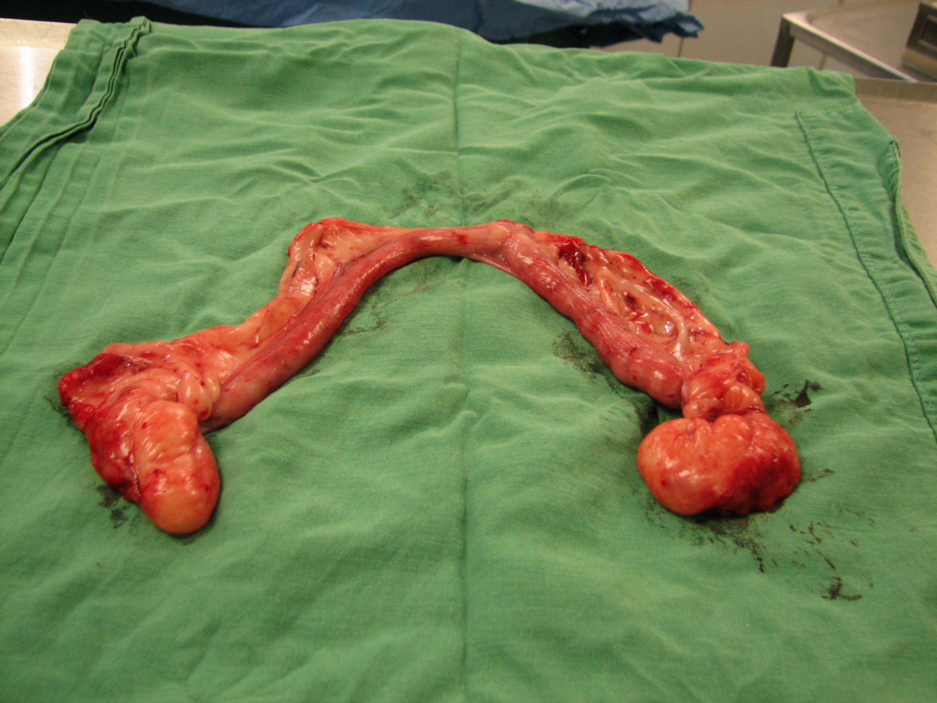 Hysterectomy and adnexectomy on both sides of a she-dog