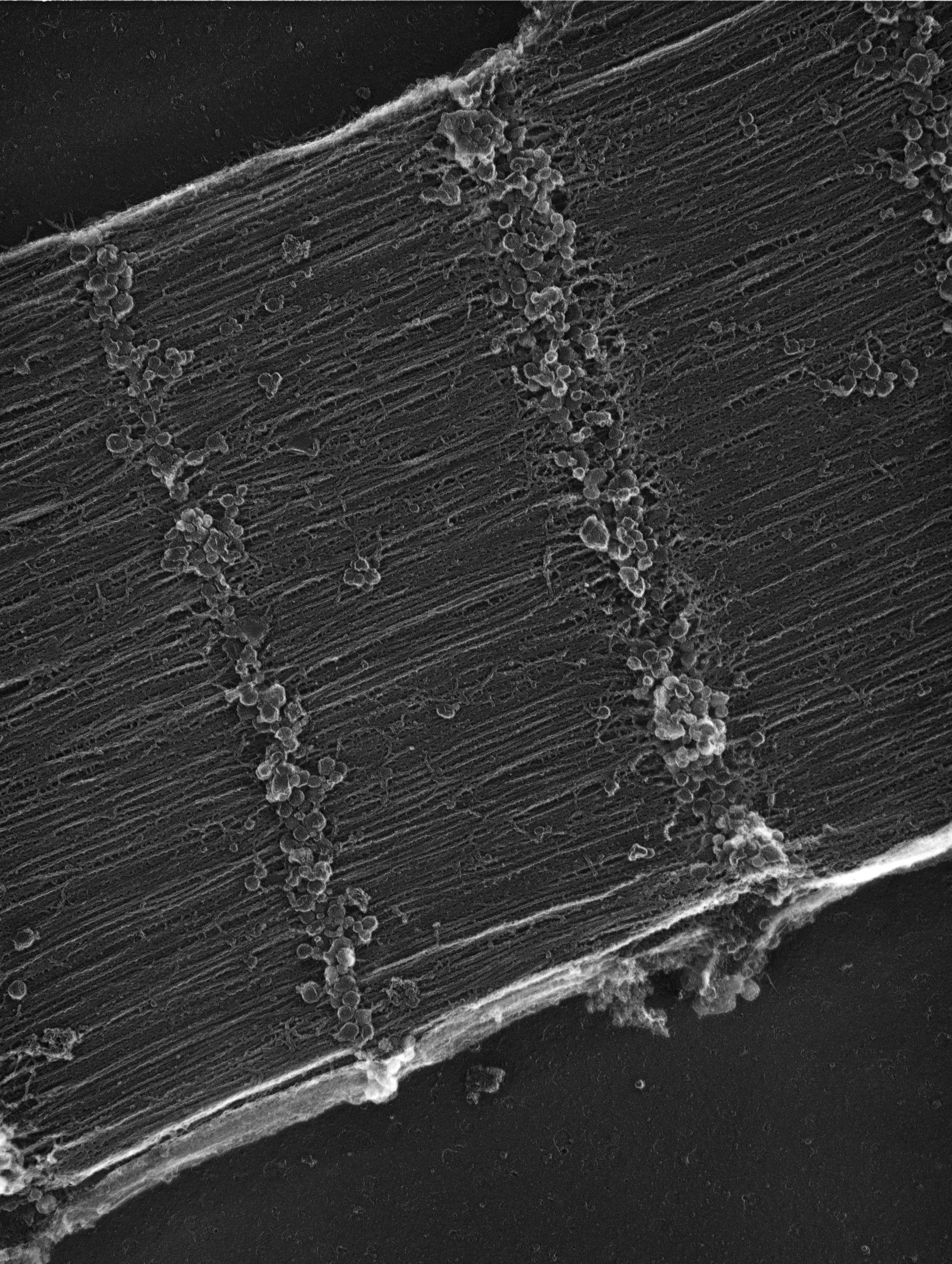 Seejungfer (Sarcoplasmic reticulum) - CIL:35971