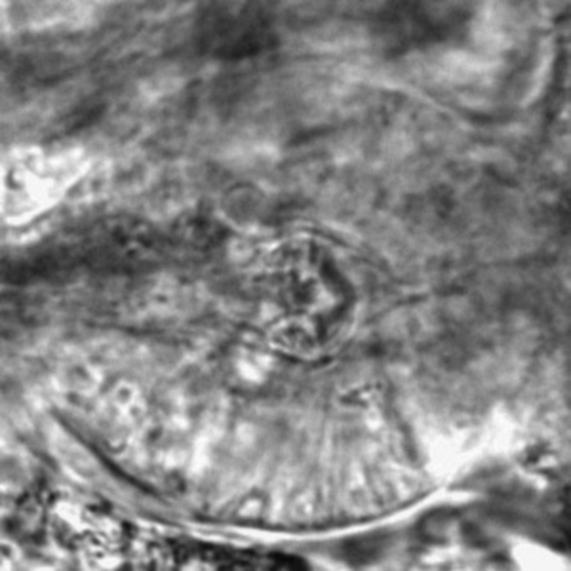 Caenorhabditis elegans - CIL:2543