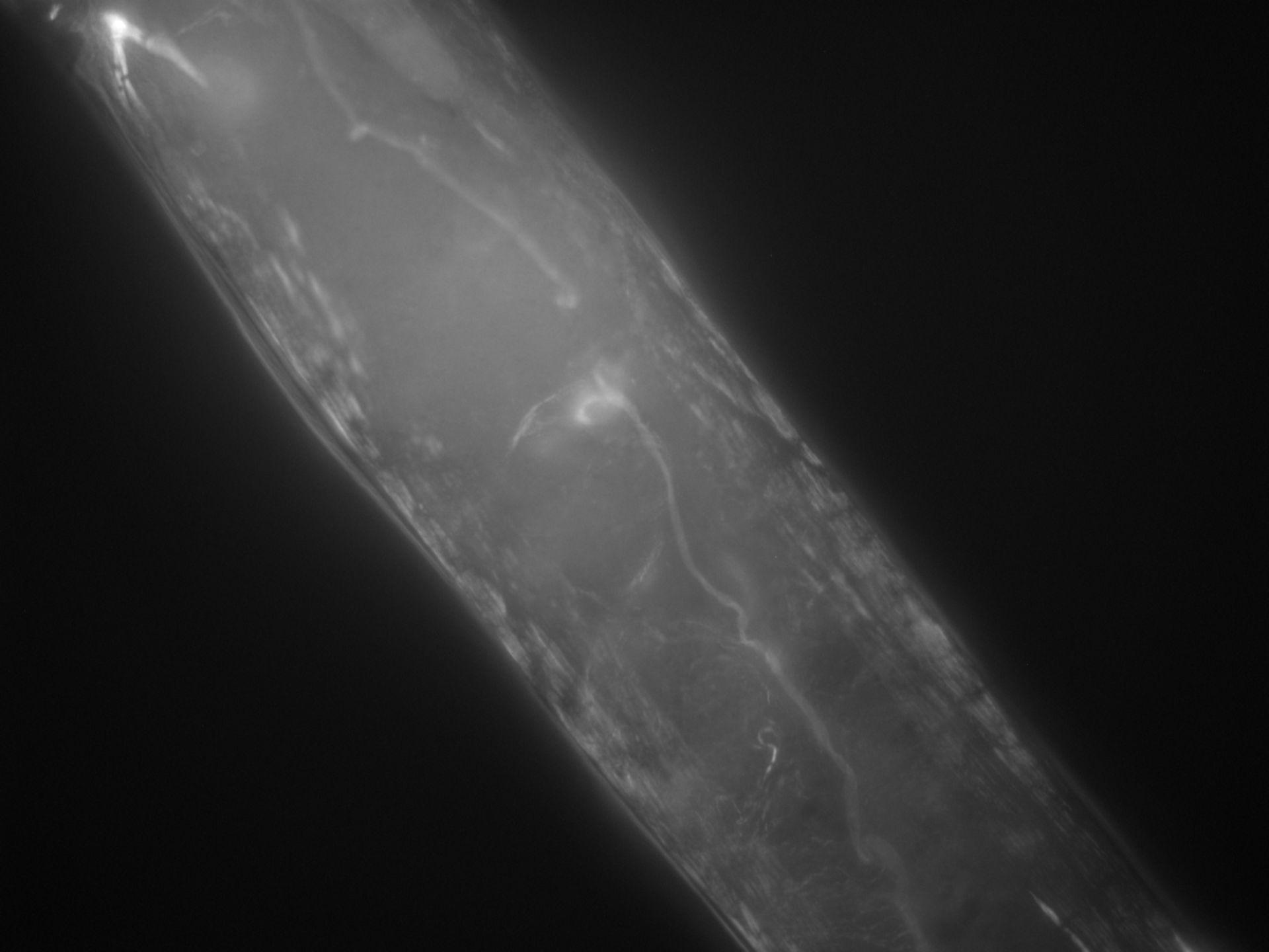 Caenorhabditis elegans (Actin filament) - CIL:1304