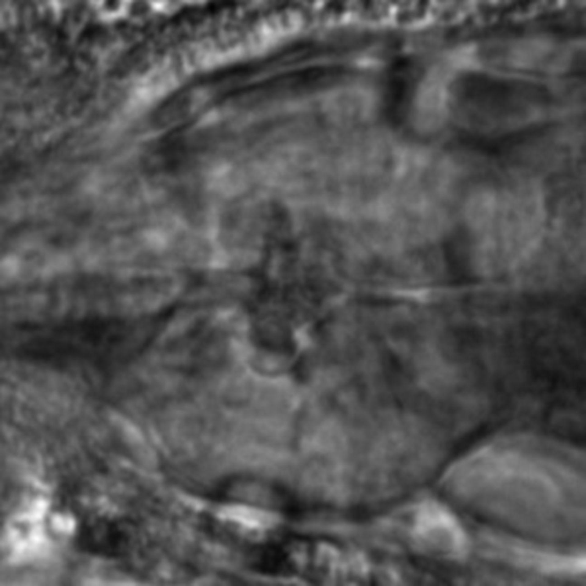 Caenorhabditis elegans - CIL:2219