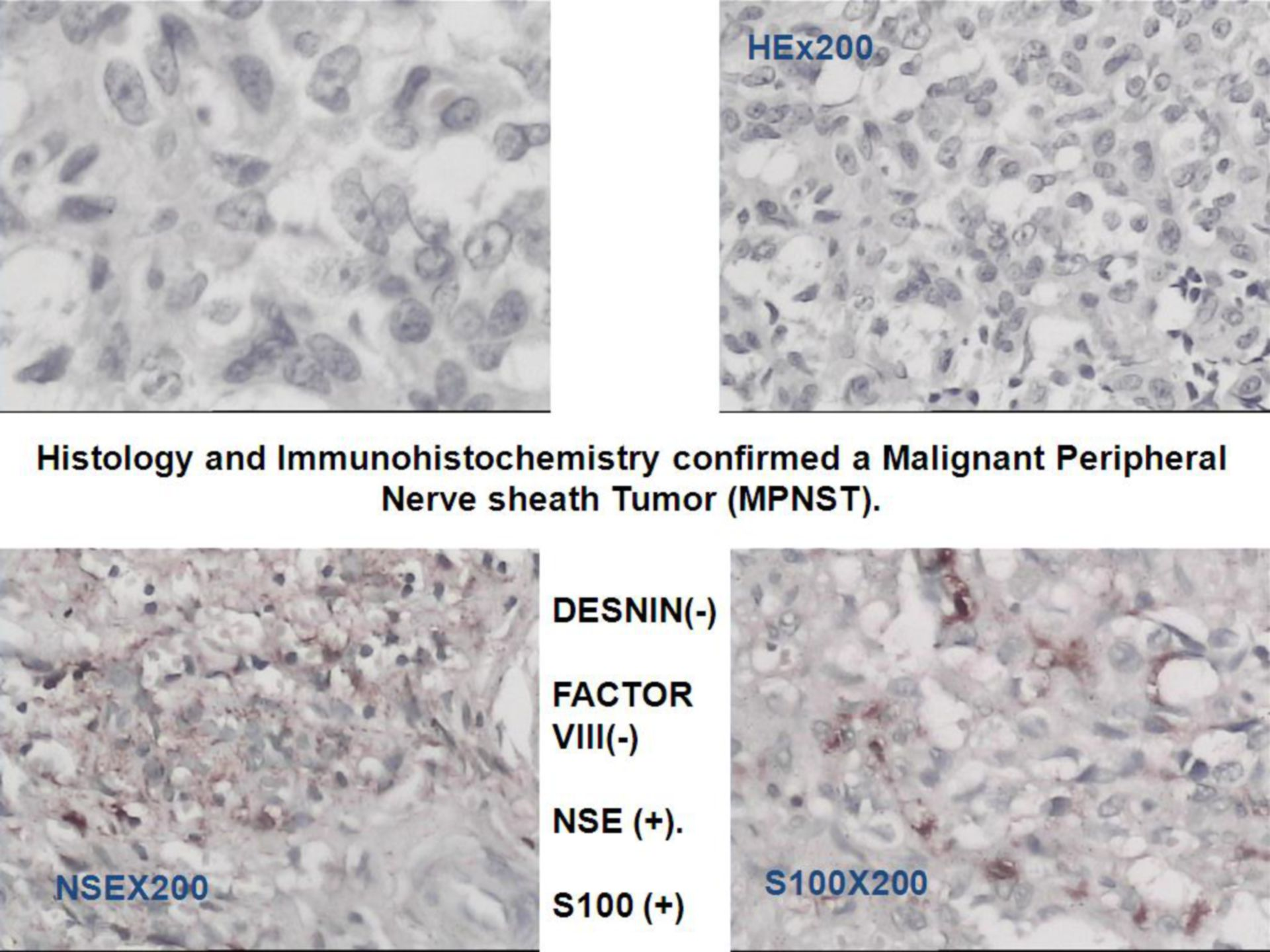 Tumor de la vaina nerviosa periférica/Neurofibromatosis tipo 1