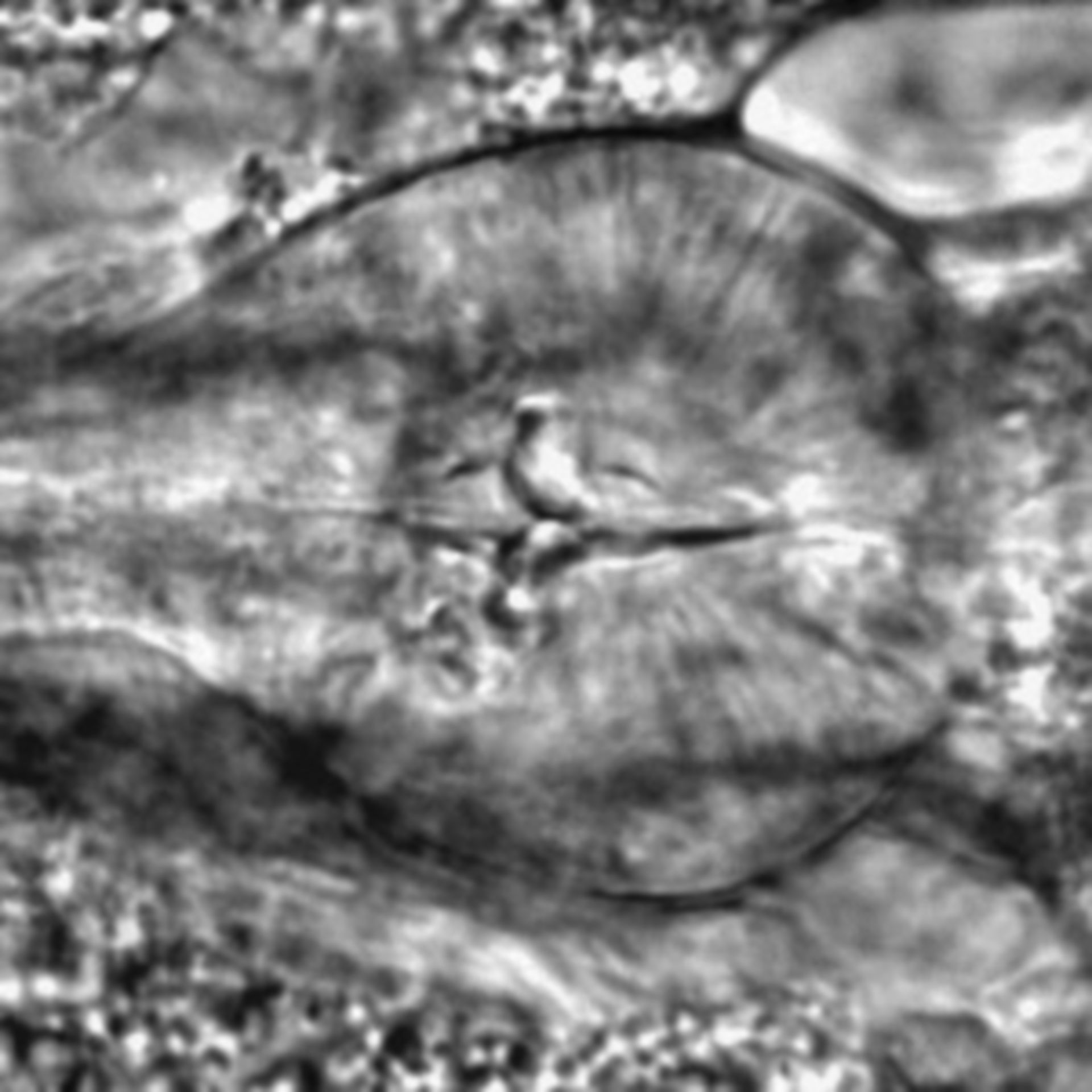 Caenorhabditis elegans - CIL:2202