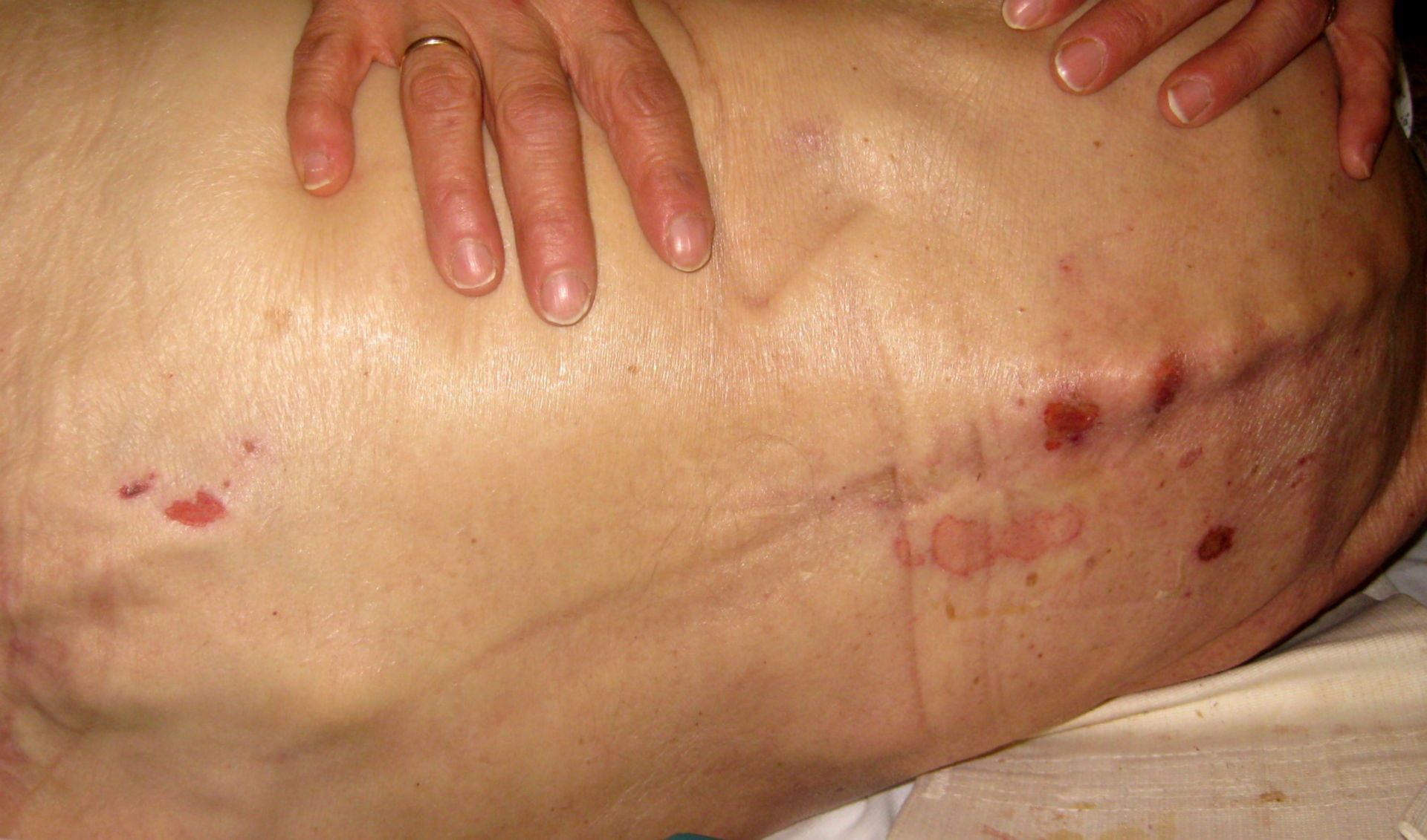 Decubital ulcer of the thoracic vertebral column, grade I/II