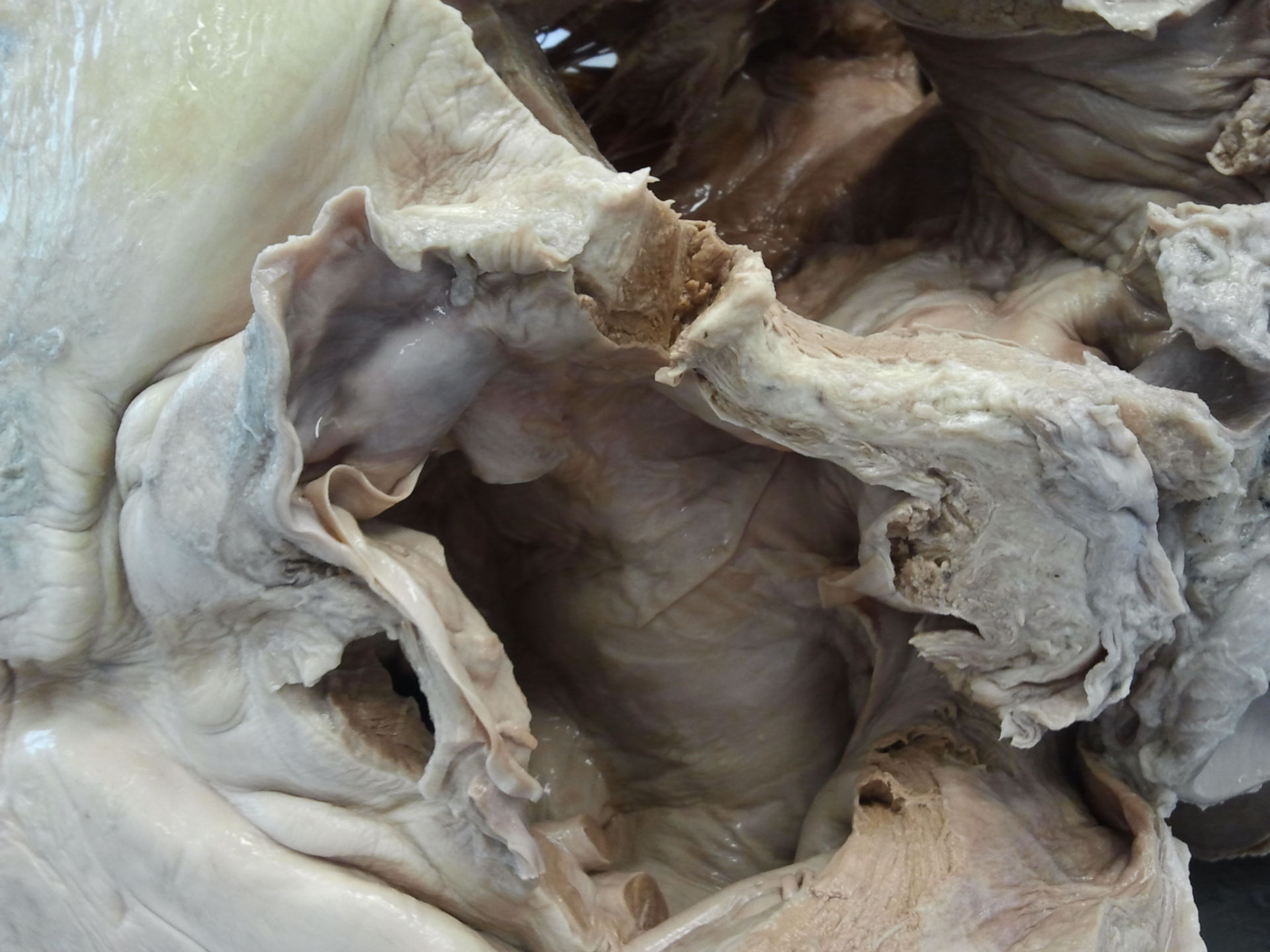 Preparation of an elephant's heart 2