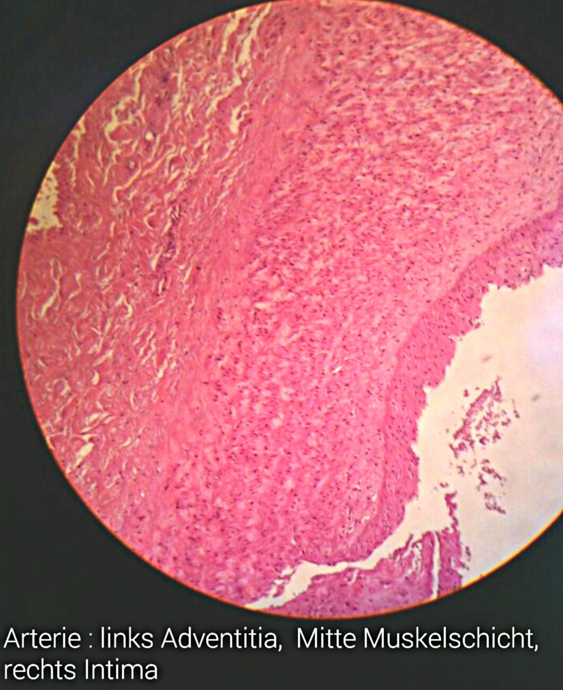 Arterie-Schichten