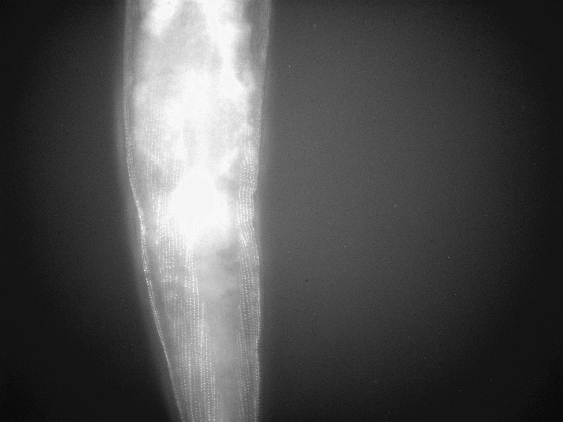 Caenorhabditis elegans (filamento di actina) - CIL:1303