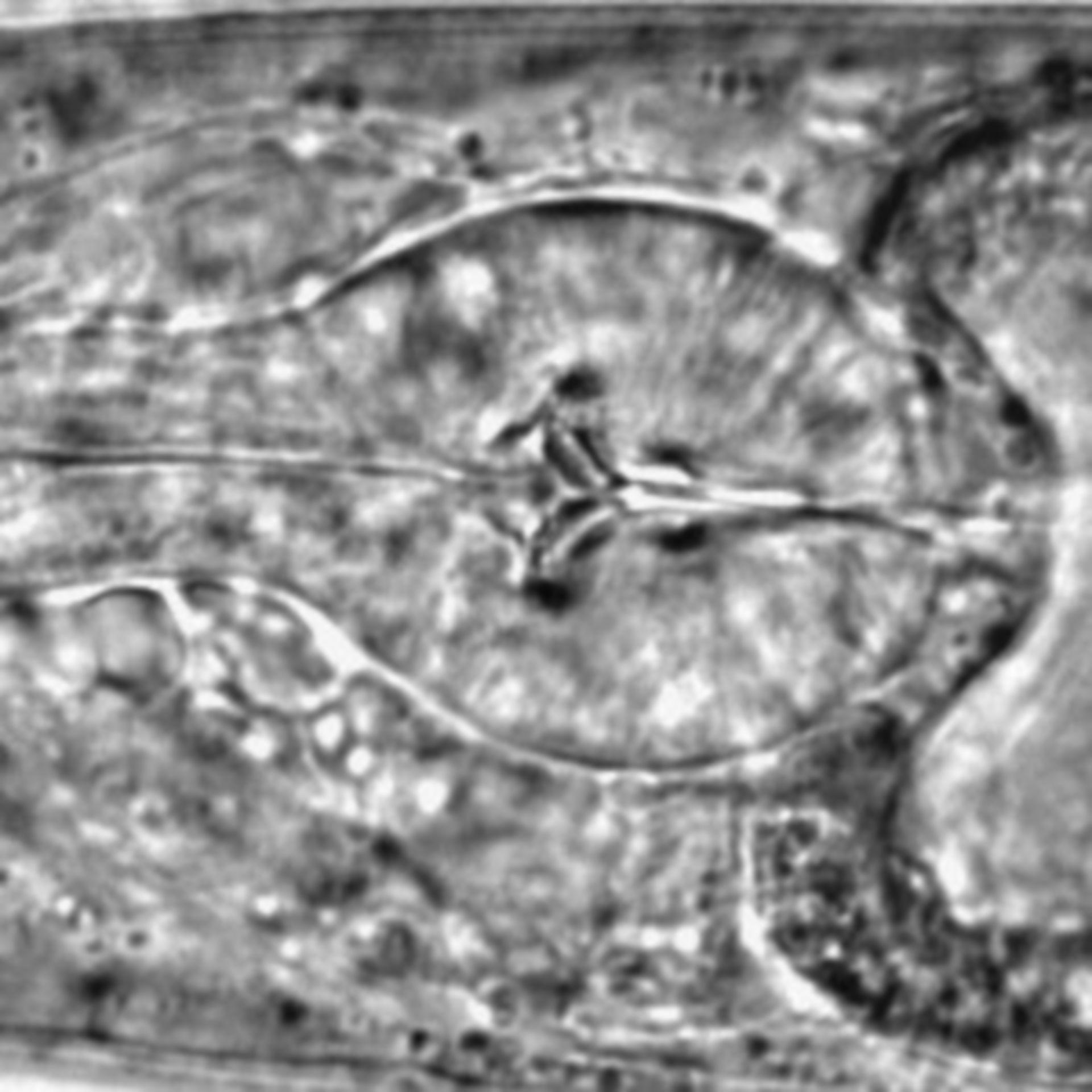 Caenorhabditis elegans - CIL:1622