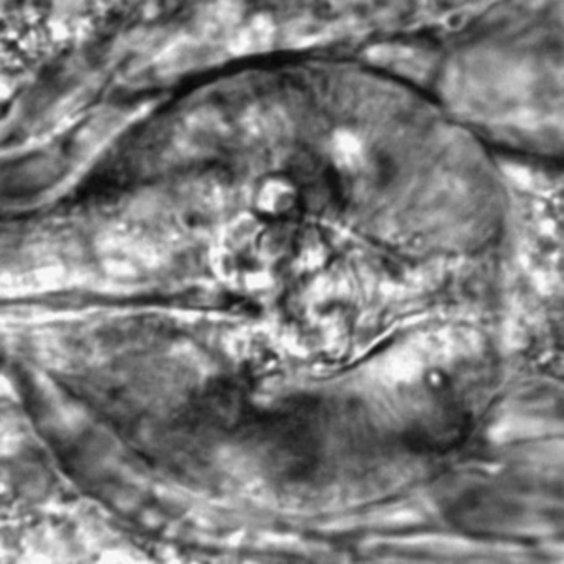 Caenorhabditis elegans - CIL:2571