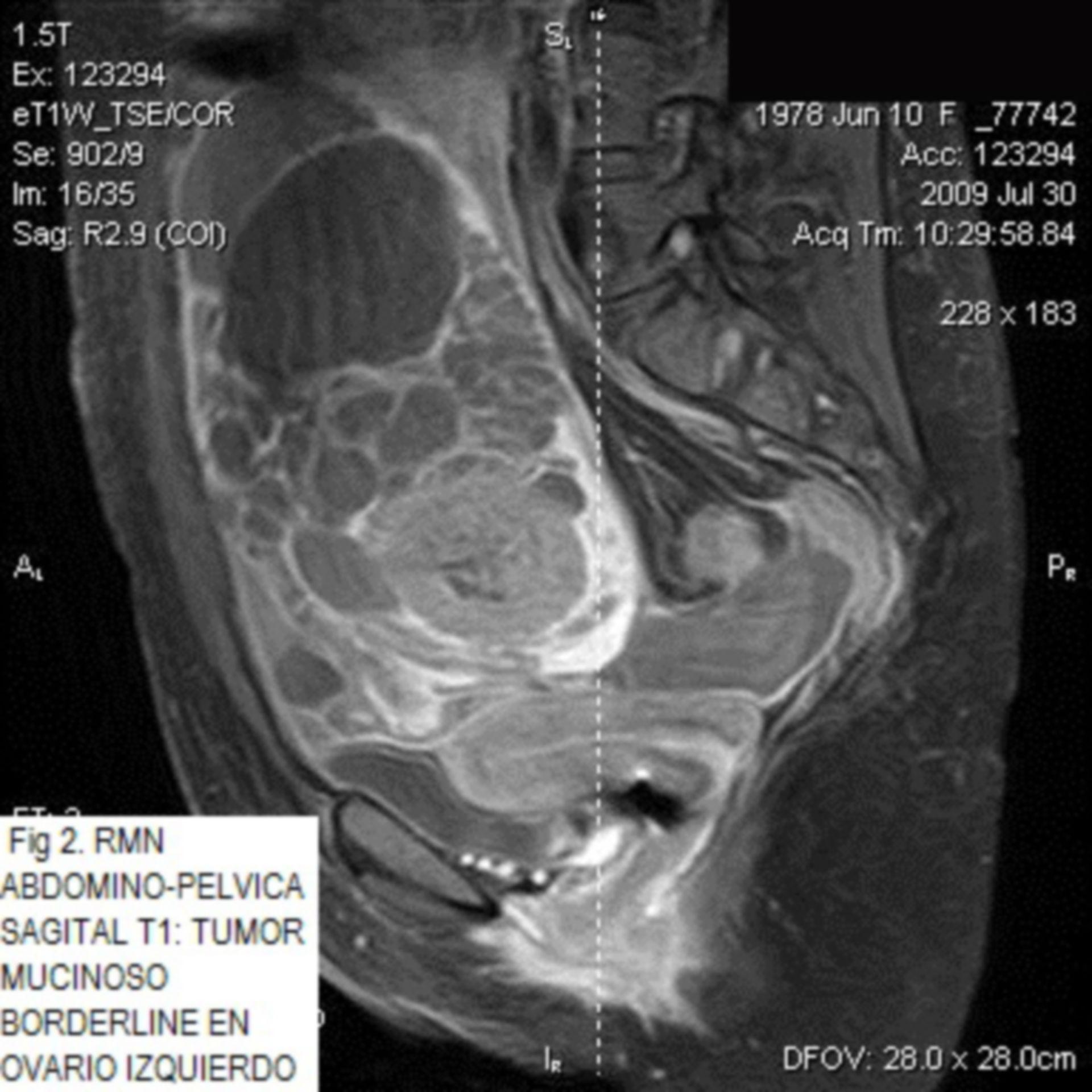 Carcinoma Borderline Mucinoso de Ovario con Recurrencia metastásica hepática ¿tumor ovárico o digestivo?