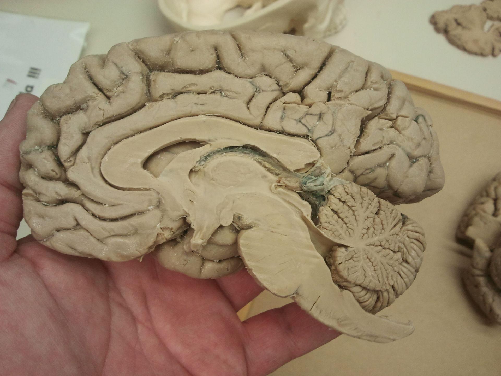 Sagitalschnitt Gehirn b