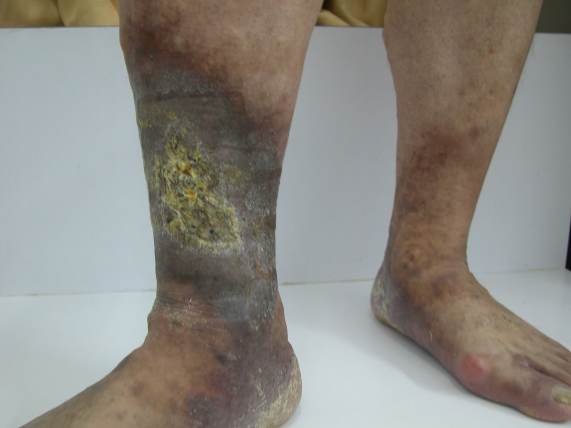 Vene varicose con formazione di crosta. Iperpigmentazione,non trattata in lunga data.