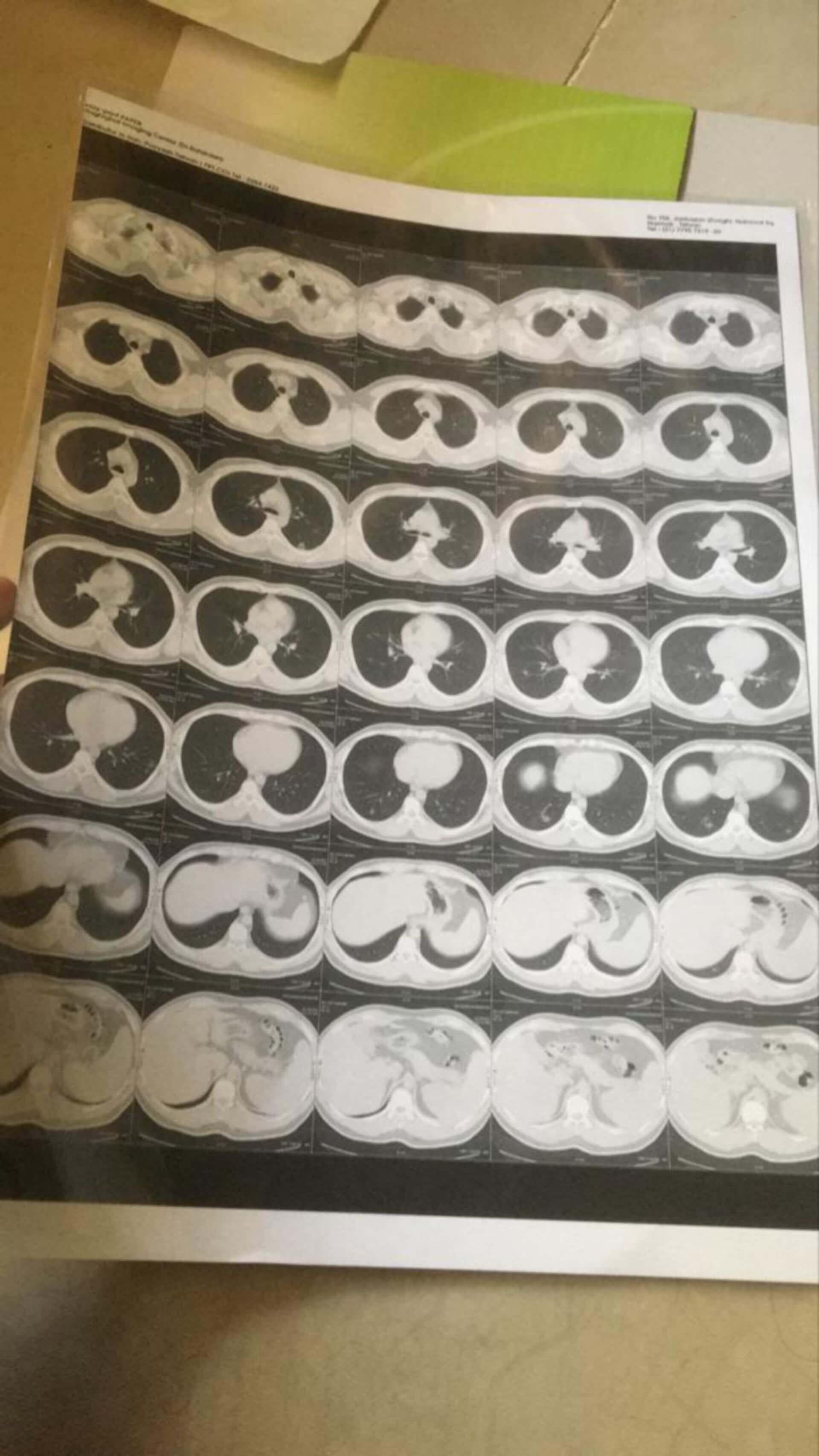 Bitte um Befundung der CT Thorax Bilder