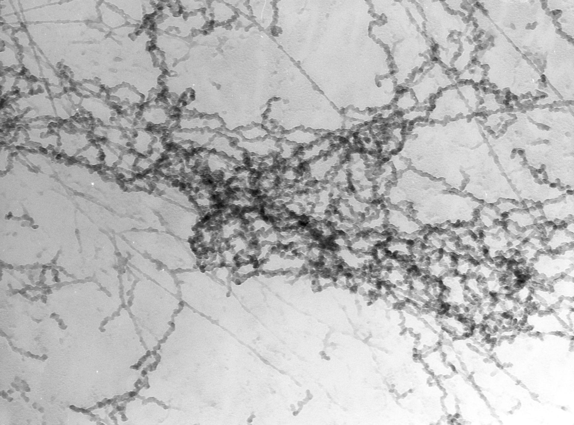 Notopthalmus viridescence (Nuclear chromatin) - CIL:10082