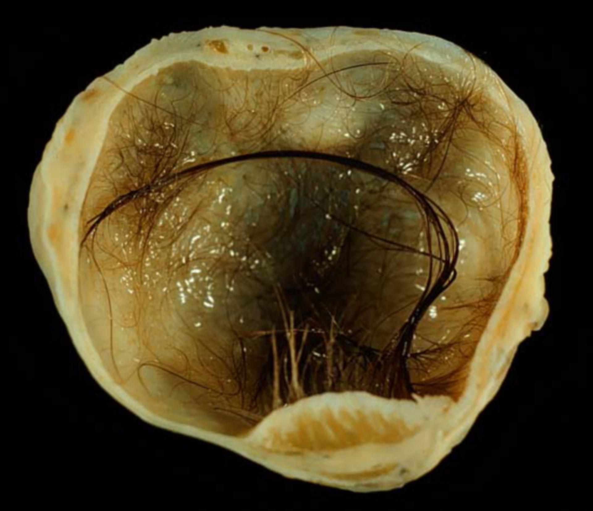 Reifes zystisches Teratom des Ovars