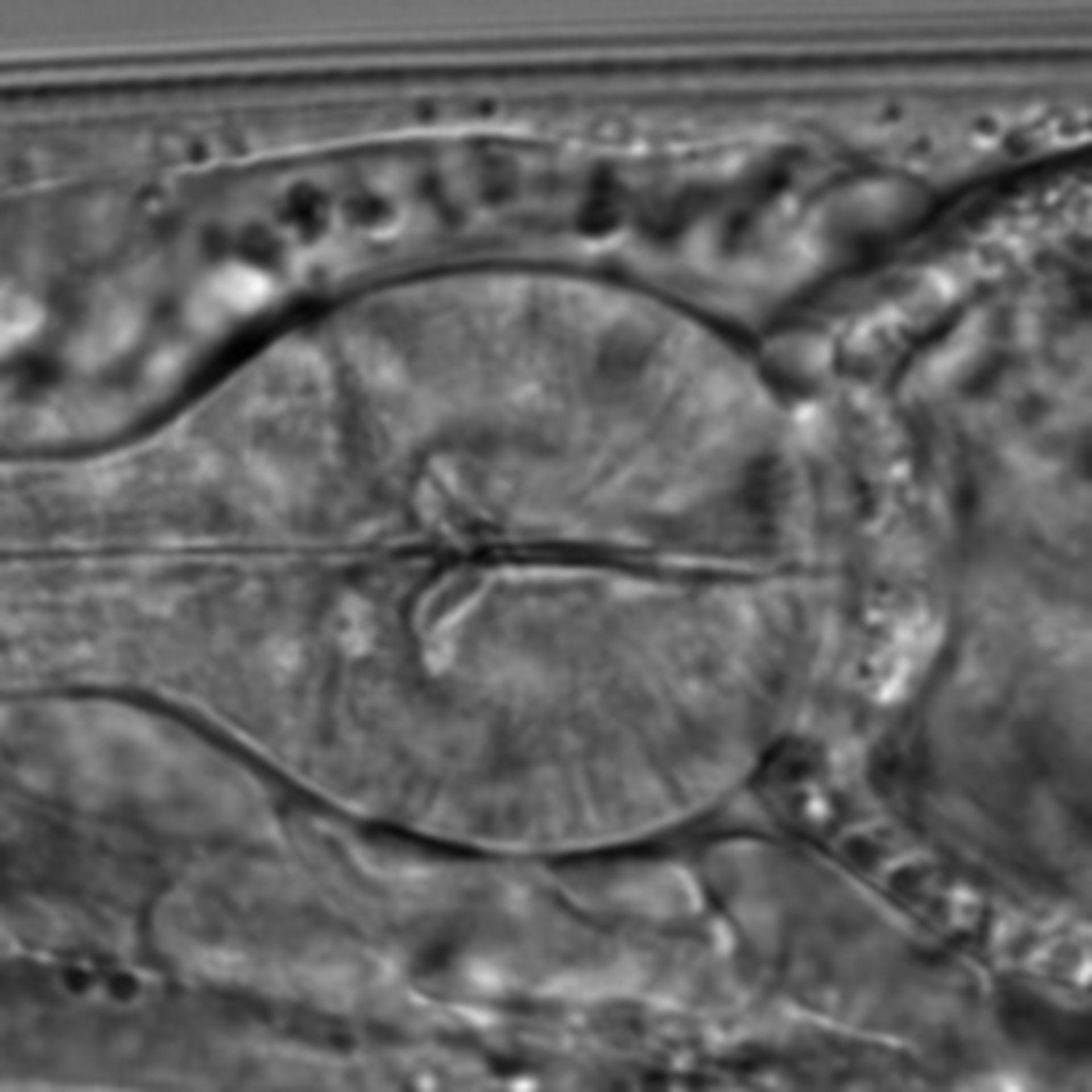 Caenorhabditis elegans - CIL:1608
