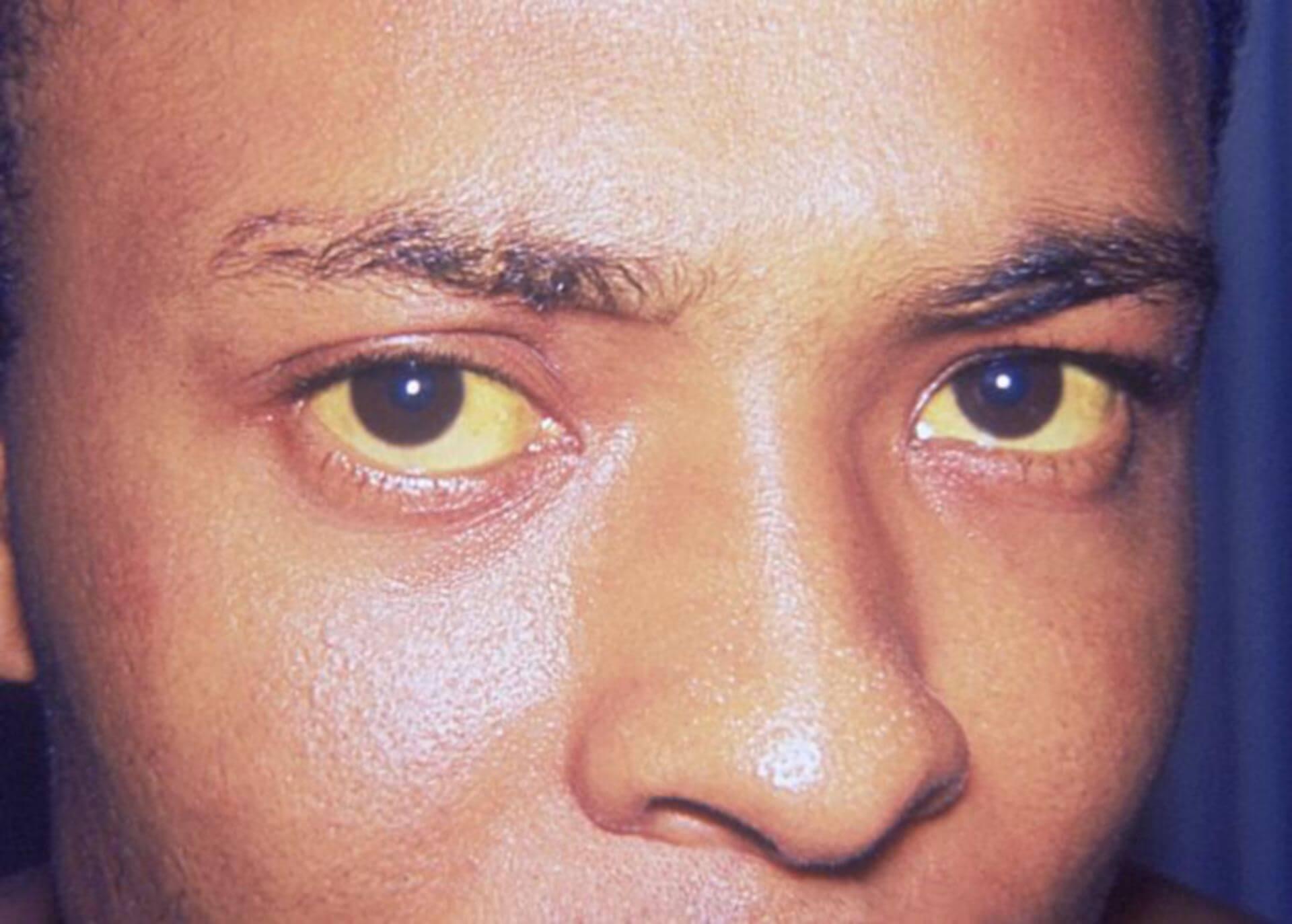 Ikterus (Jaundice Eyes)