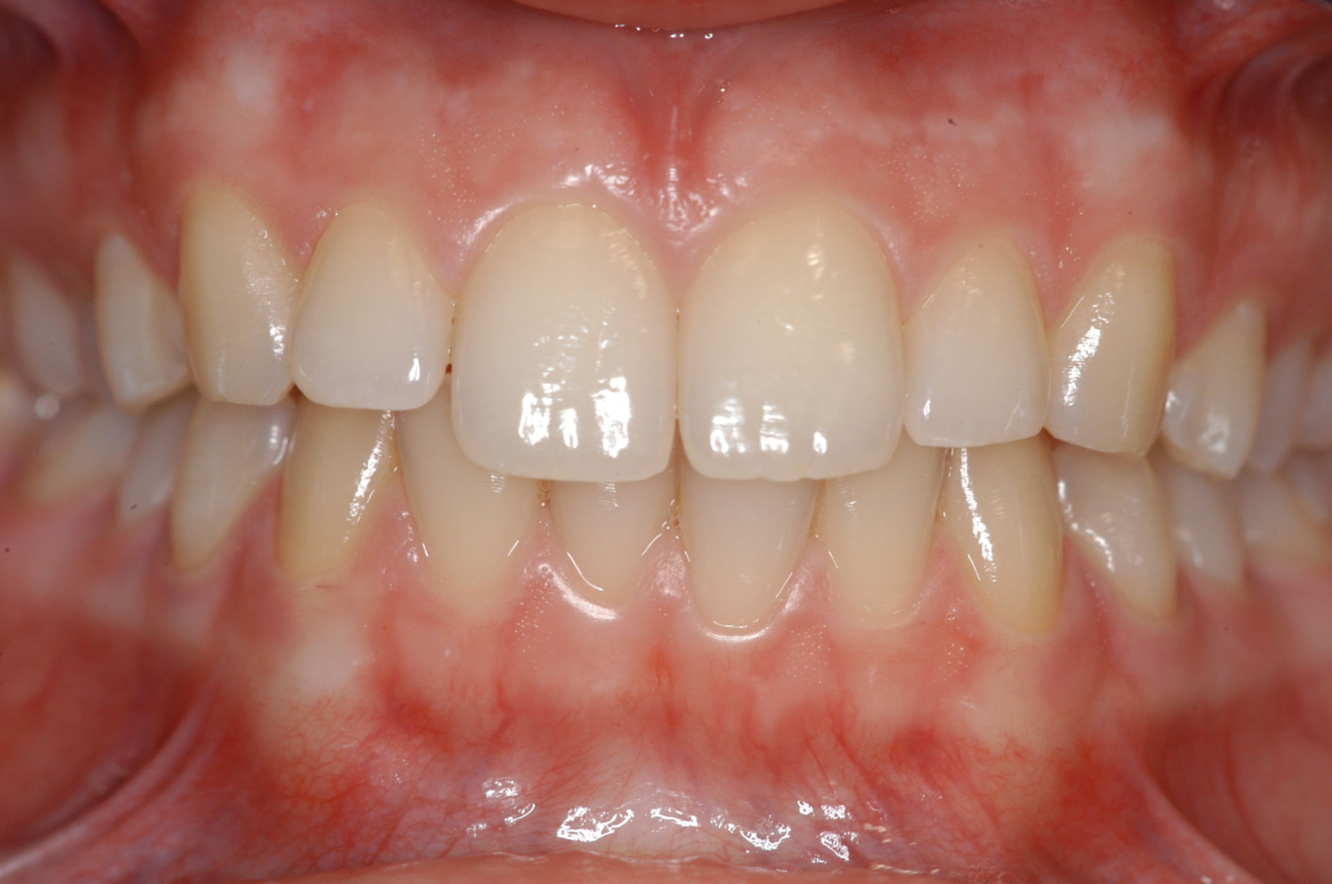 Healthy caries-free teeth frontal Overview