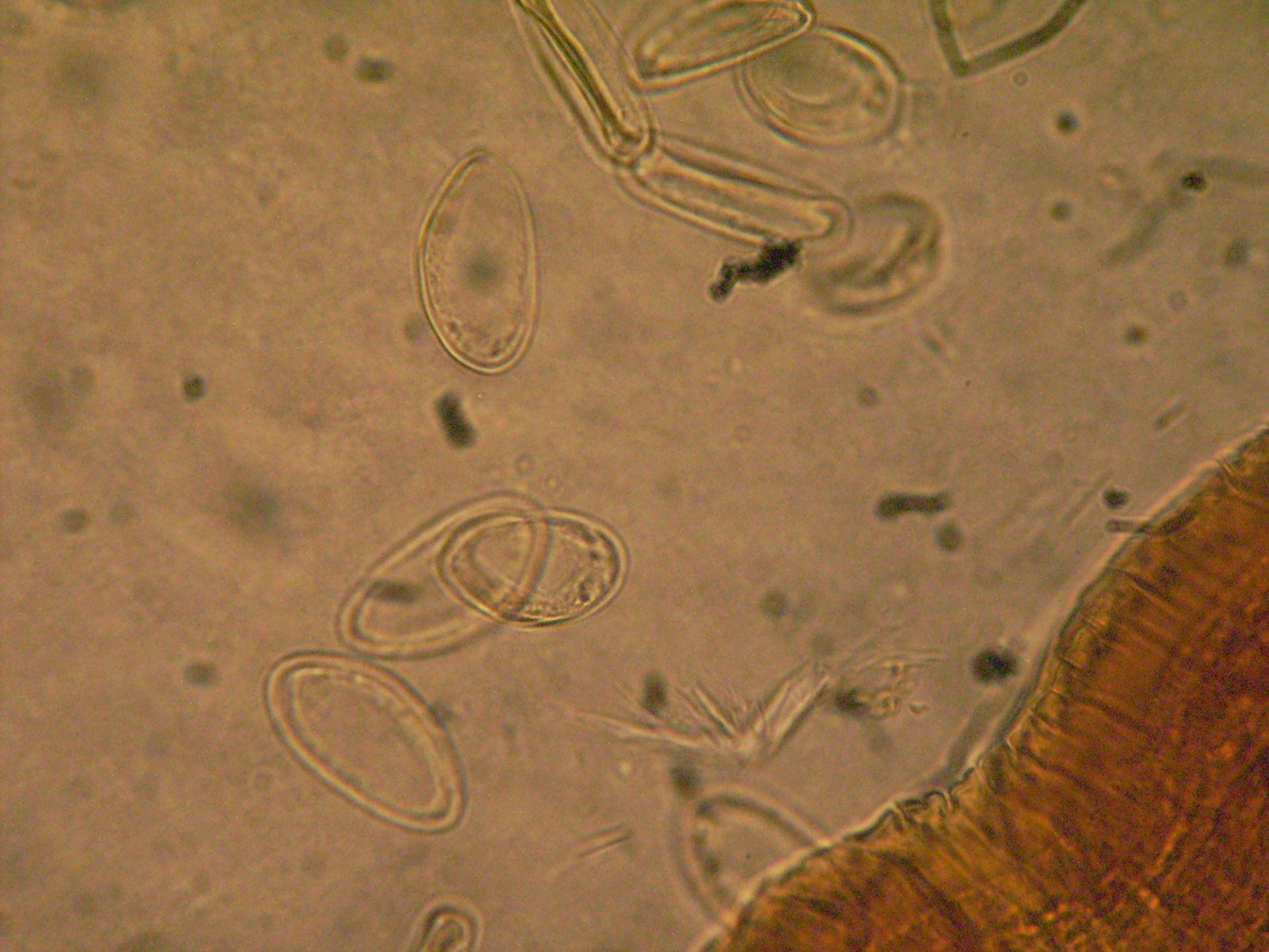 Enterobius vermicularis b.