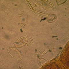Enterobius vermicularis kinder. Enterobius vermicularis bei kindern. Enterobius vermicularis kinder