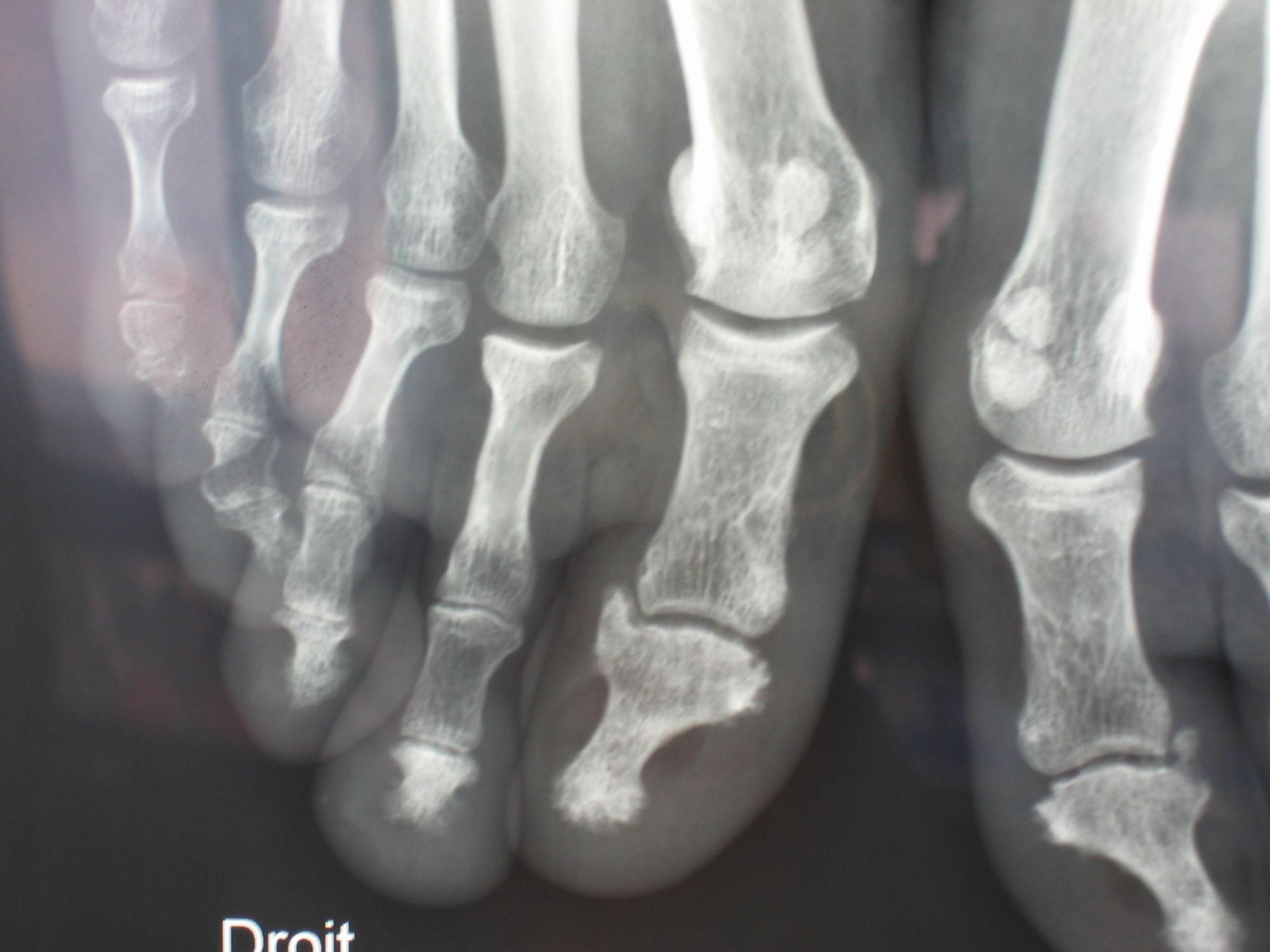 Psoriasis-Arthritis, Fußbeteiligung